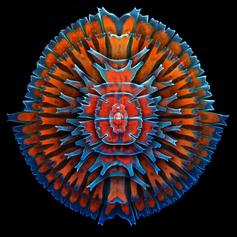 Foto de microscopio electrónico