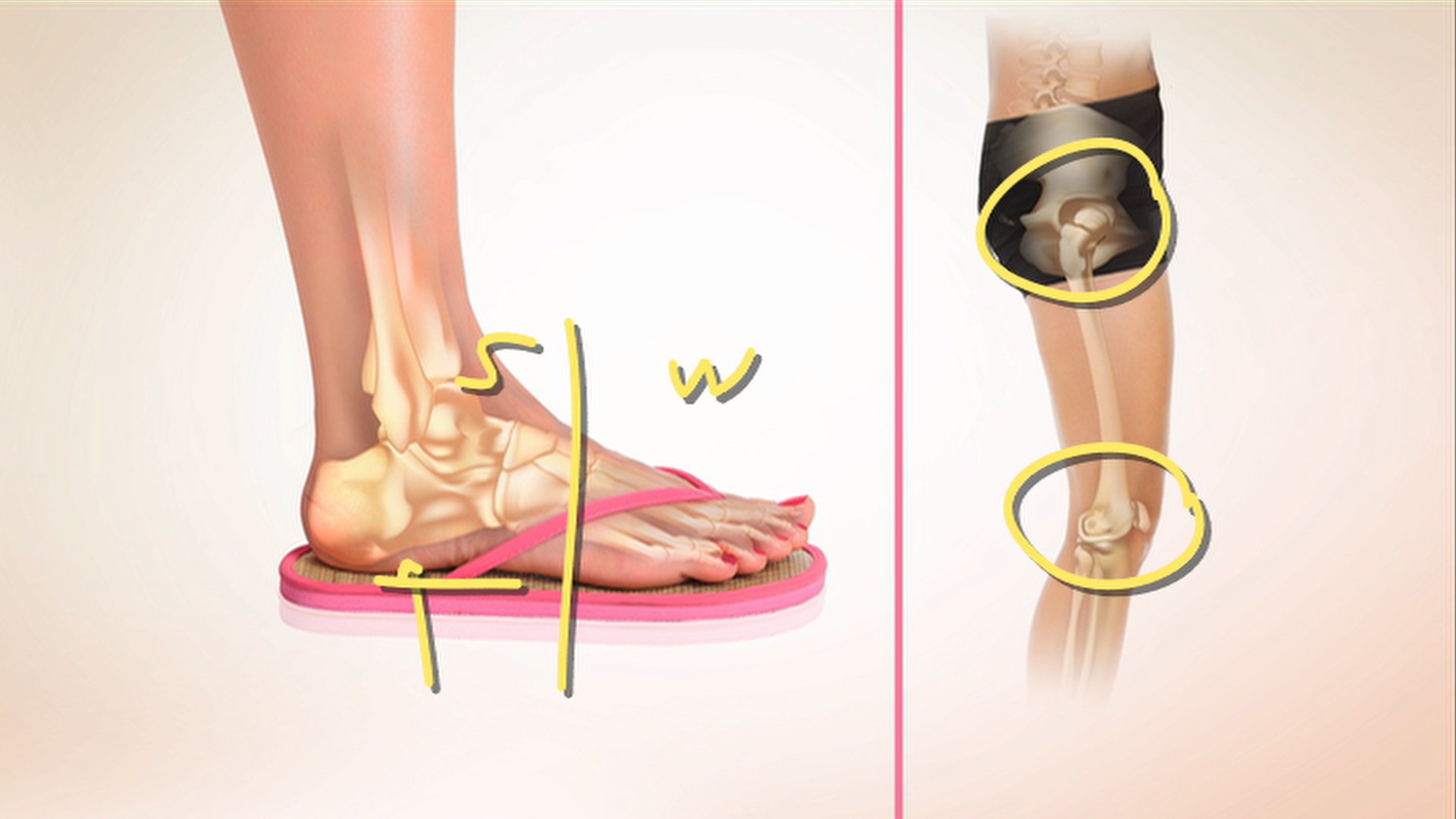 b02398d9bea89 How flip-flops may be damaging your feet