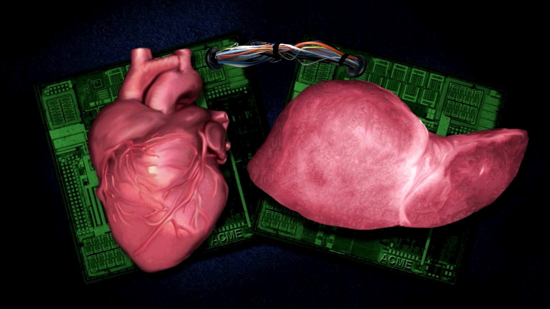 Cloned organs