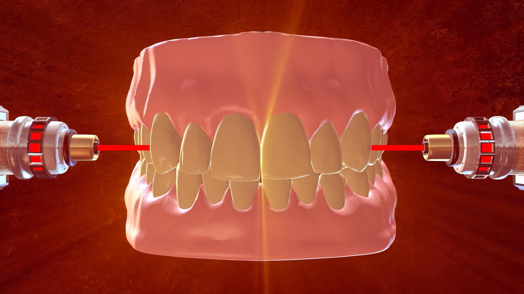 Metal Fillings No More: Lasers Used to Rebuild Teeth