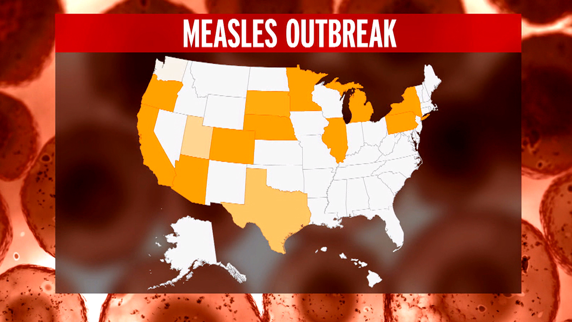 Five Babies Infected in Chicago-Area Measles Cluster