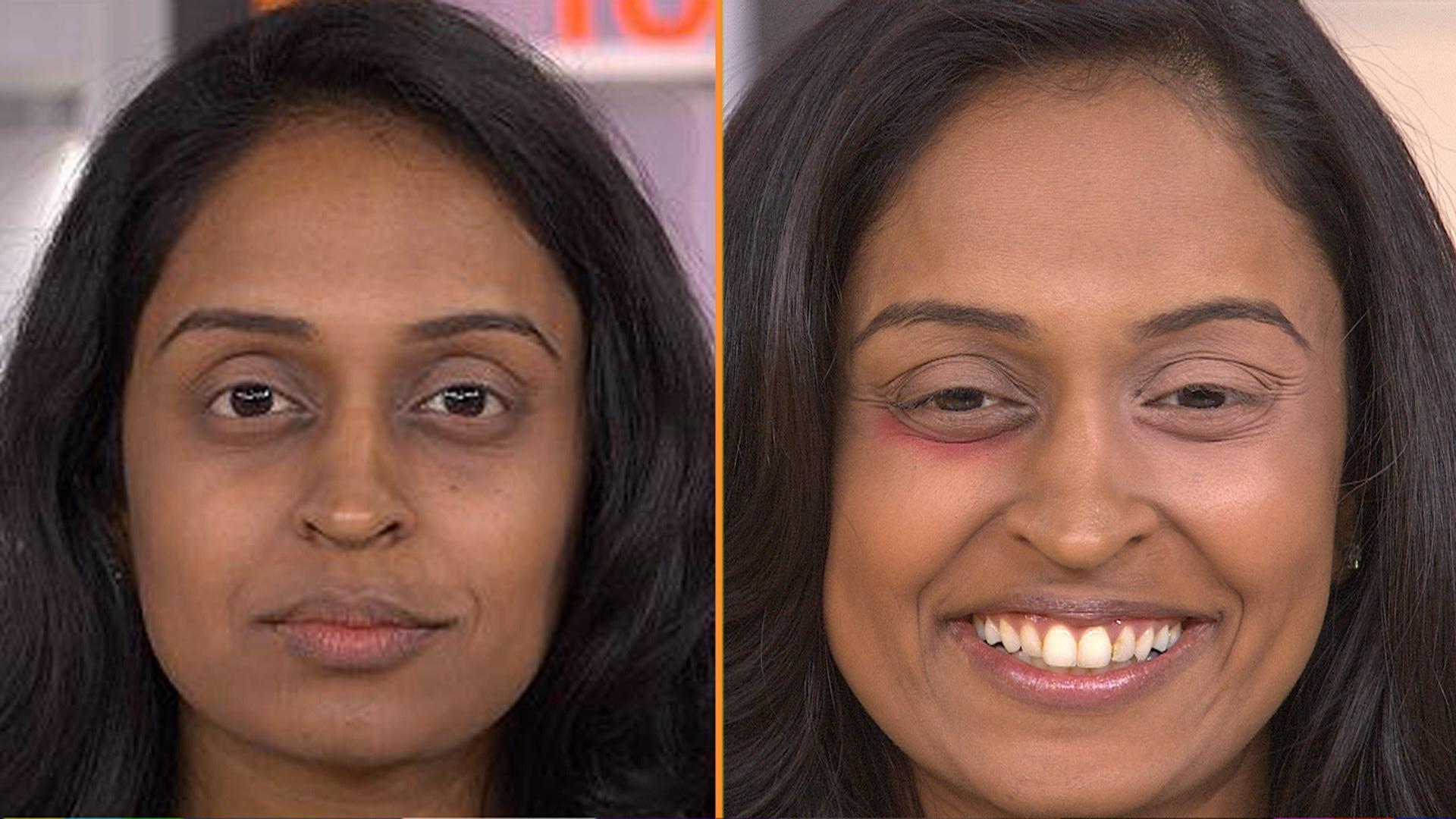Hemorrhoid Cream Has Weird Benefits For Under Eye Area