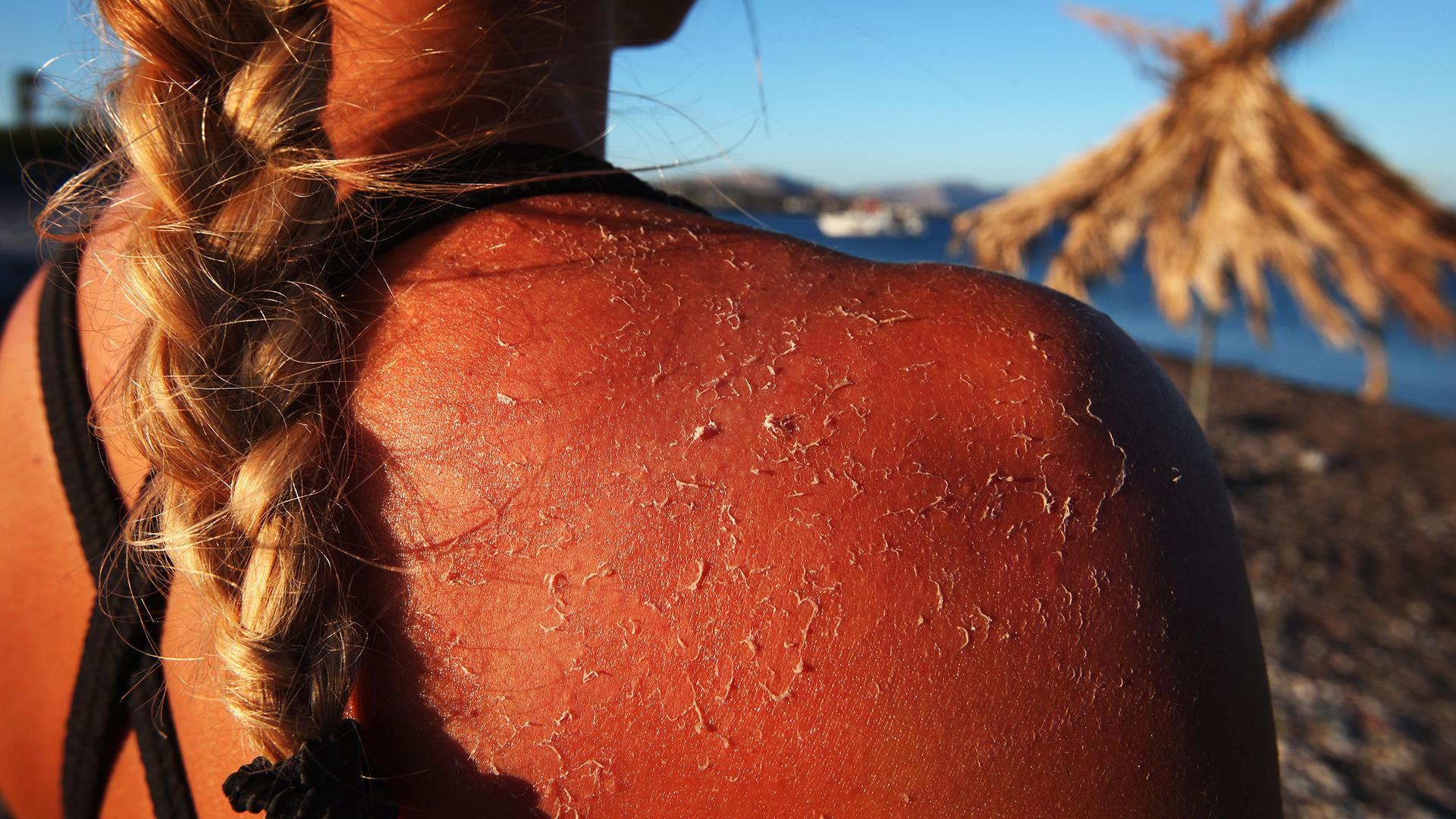 Do I have sun poisoning? 3 things you need to know