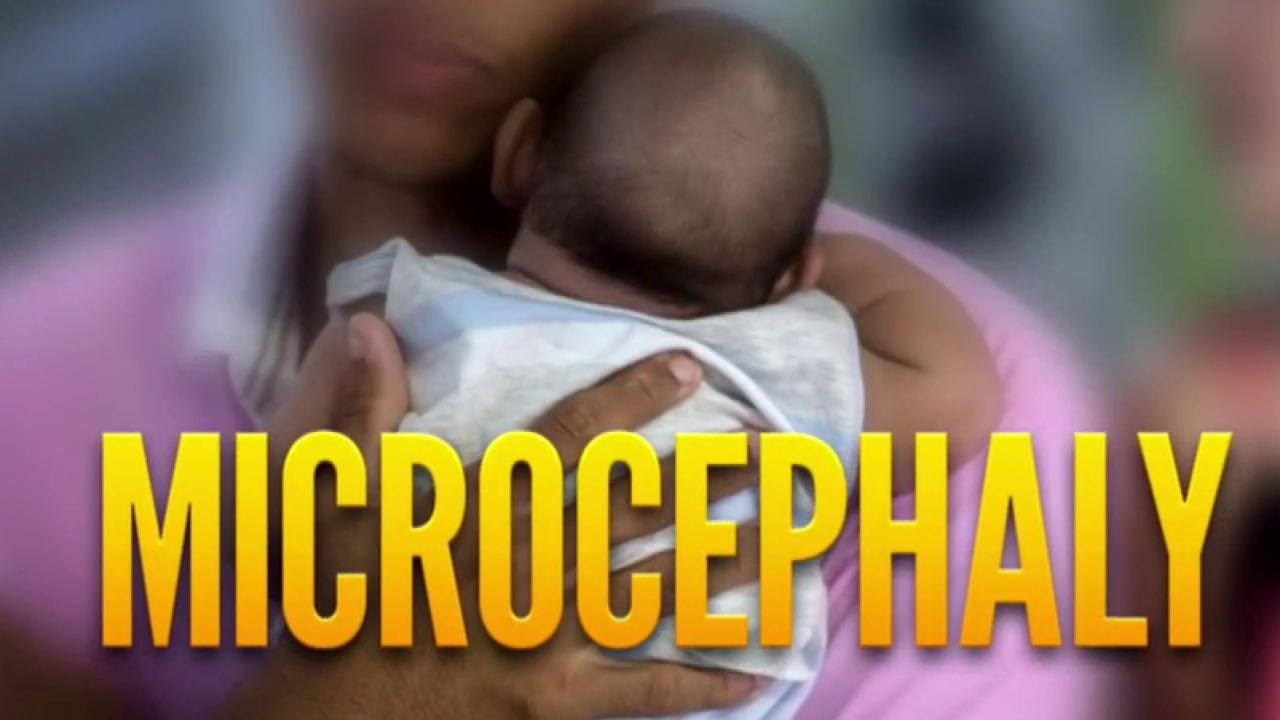 Baby born in NJ with Zika-related birth...
