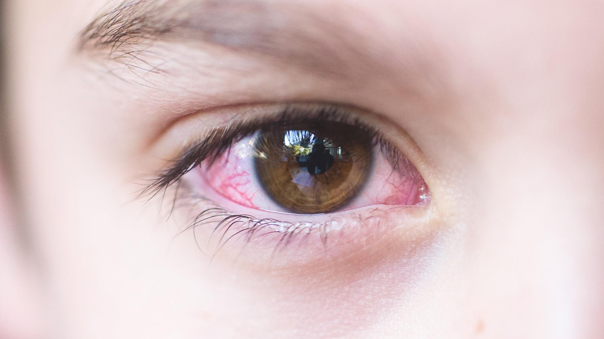 pink eye Pink eye (conjunctivitis) is uncomfortable and contagious, but — like the common cold — rarely requires medication or staying home.