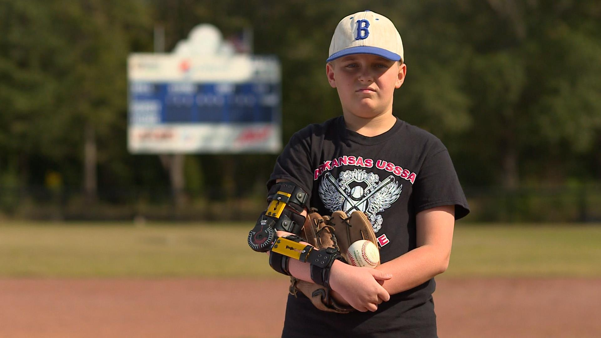 Tommy John for teens: Why kids get major league surgery