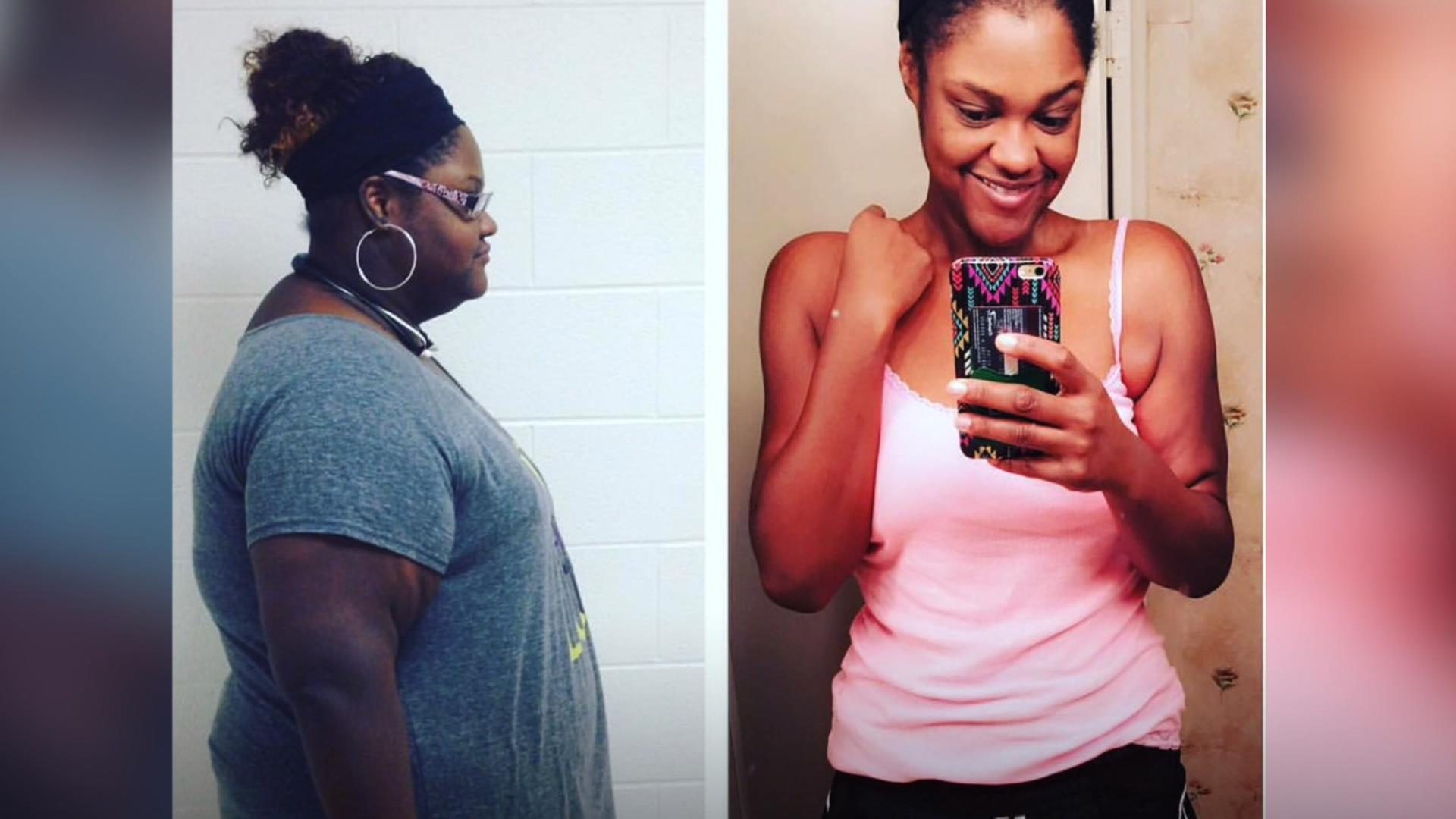 What it's like to really lose over 100 pounds
