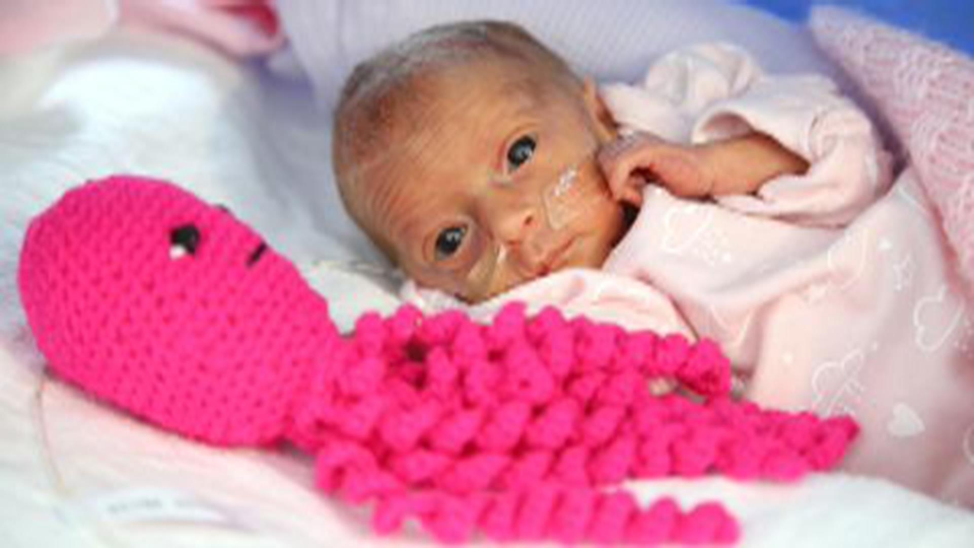 Stuffed Octopuses Soothe Premature Babies At English Hospital