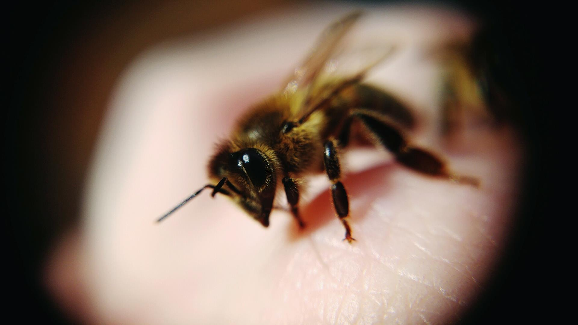 What does a bee sting look like