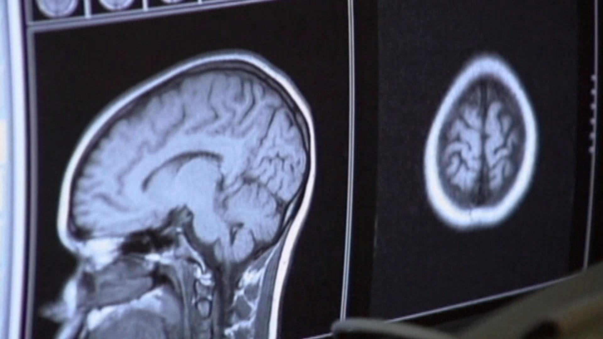 Life after death? Study finds brain still works after body dies