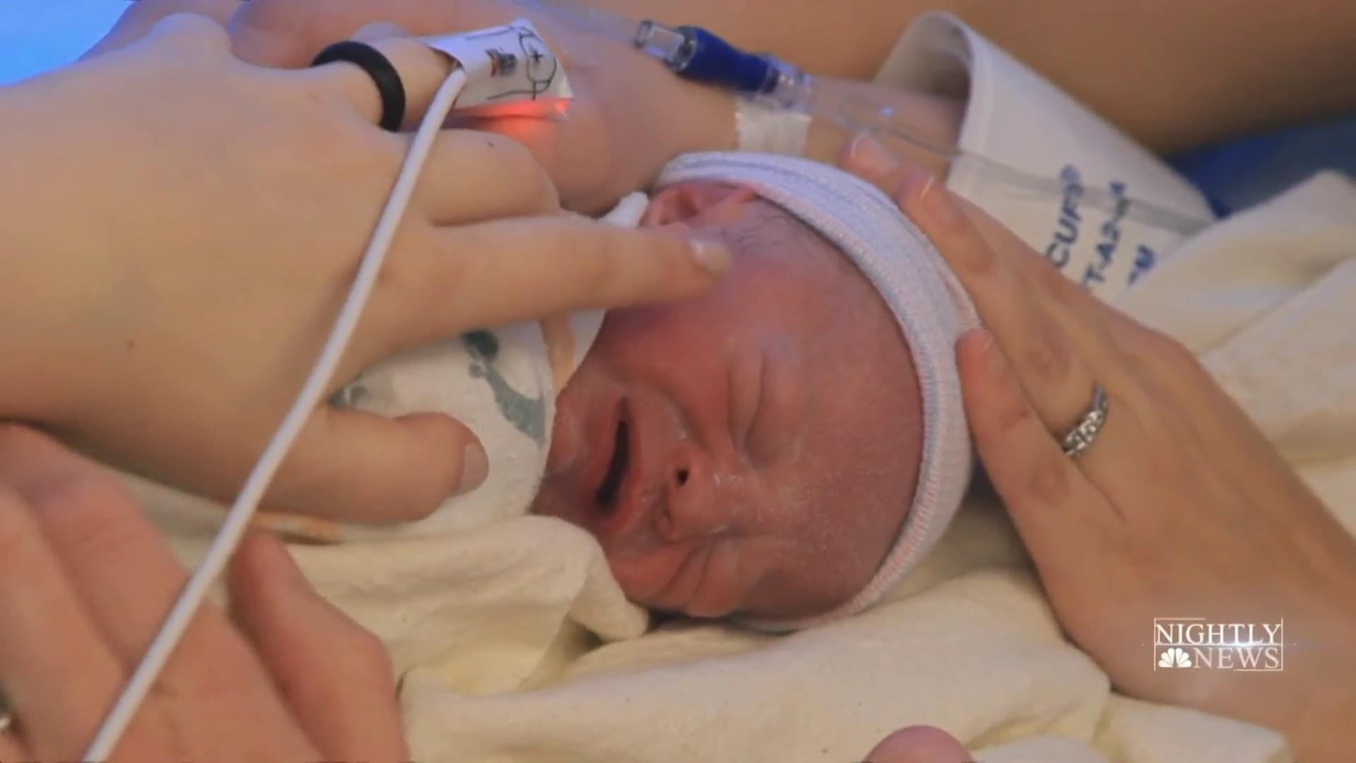 First Child In The Us Born To Mother With A Transplanted Uterus