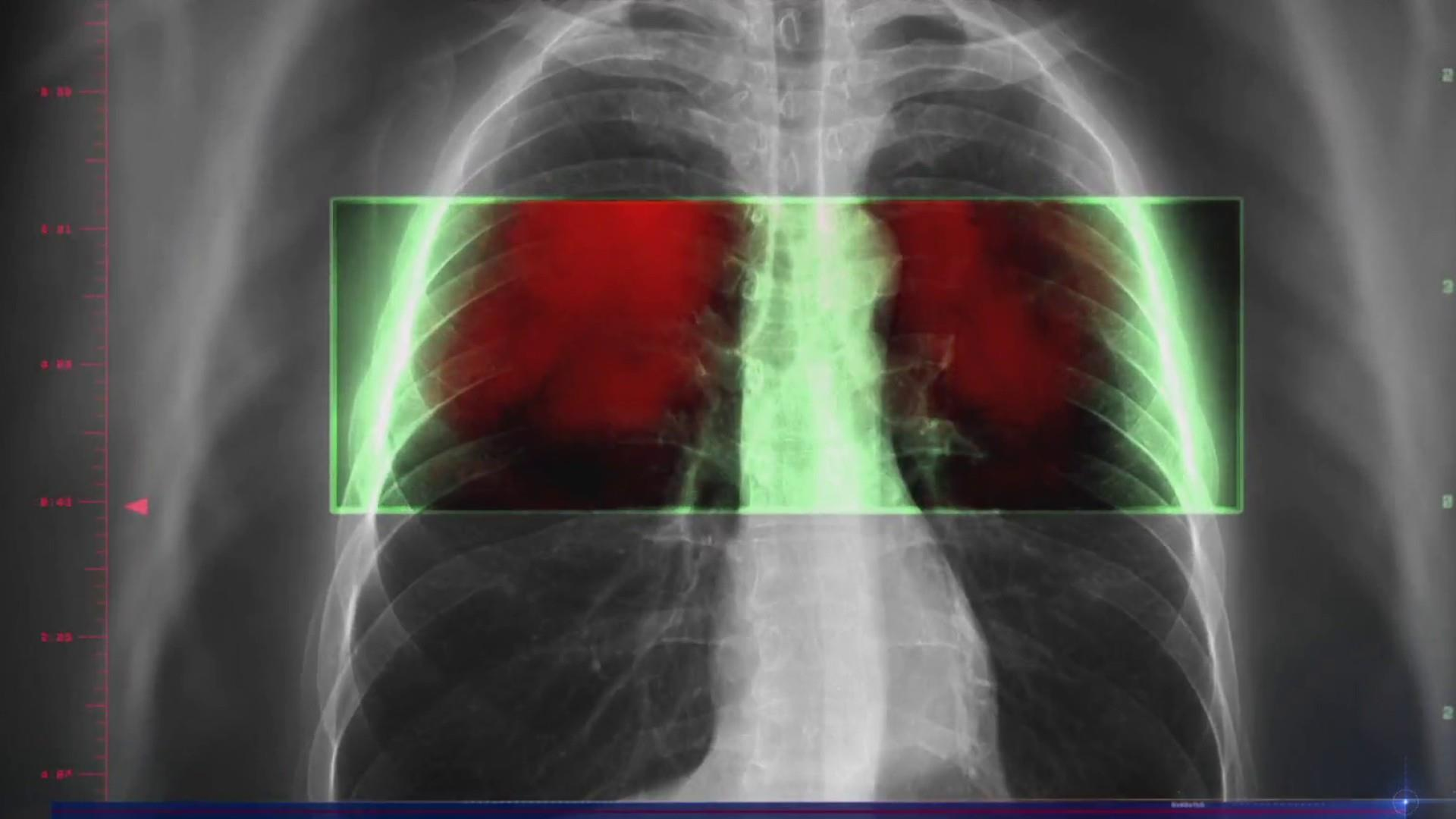 Immunotherapy transforms lung cancer, the biggest cancer killer
