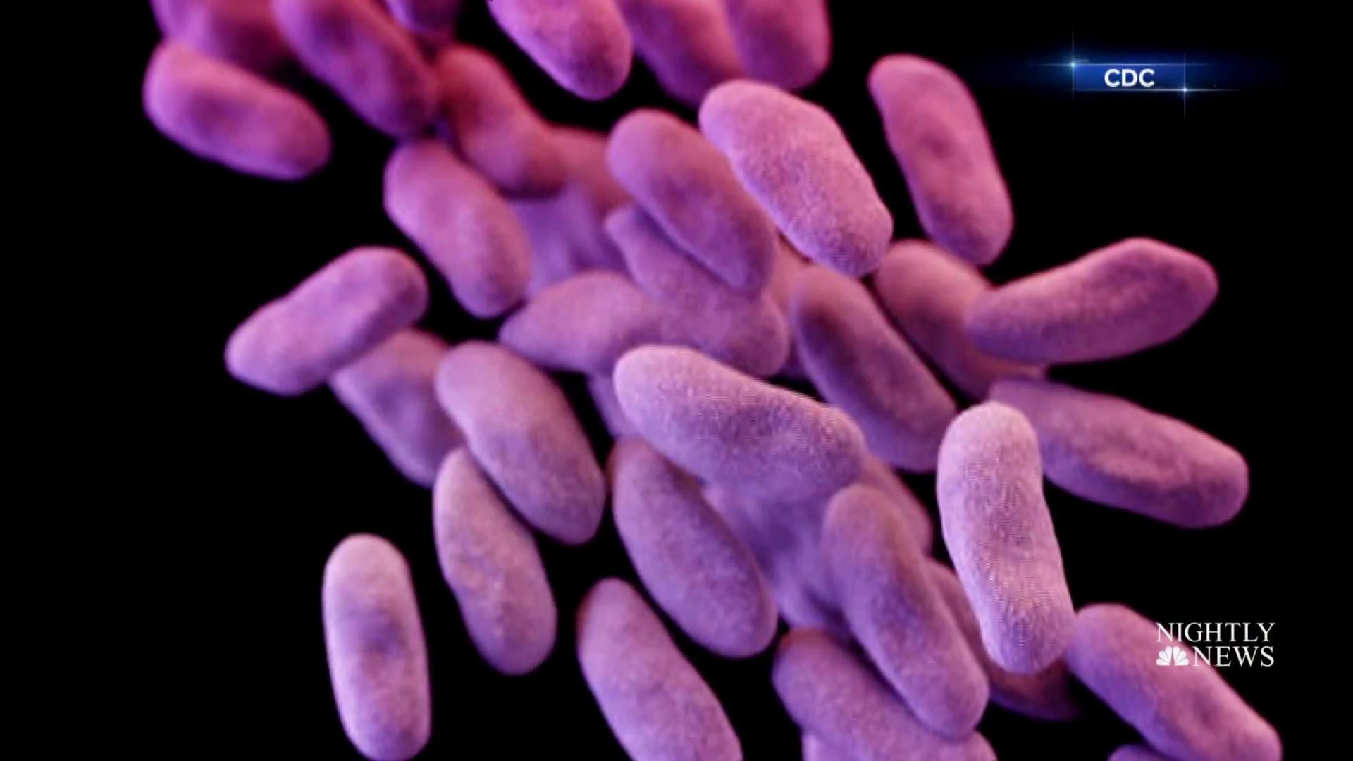 'Nightmare bacteria' are trying to spread in the U.S., CDC says
