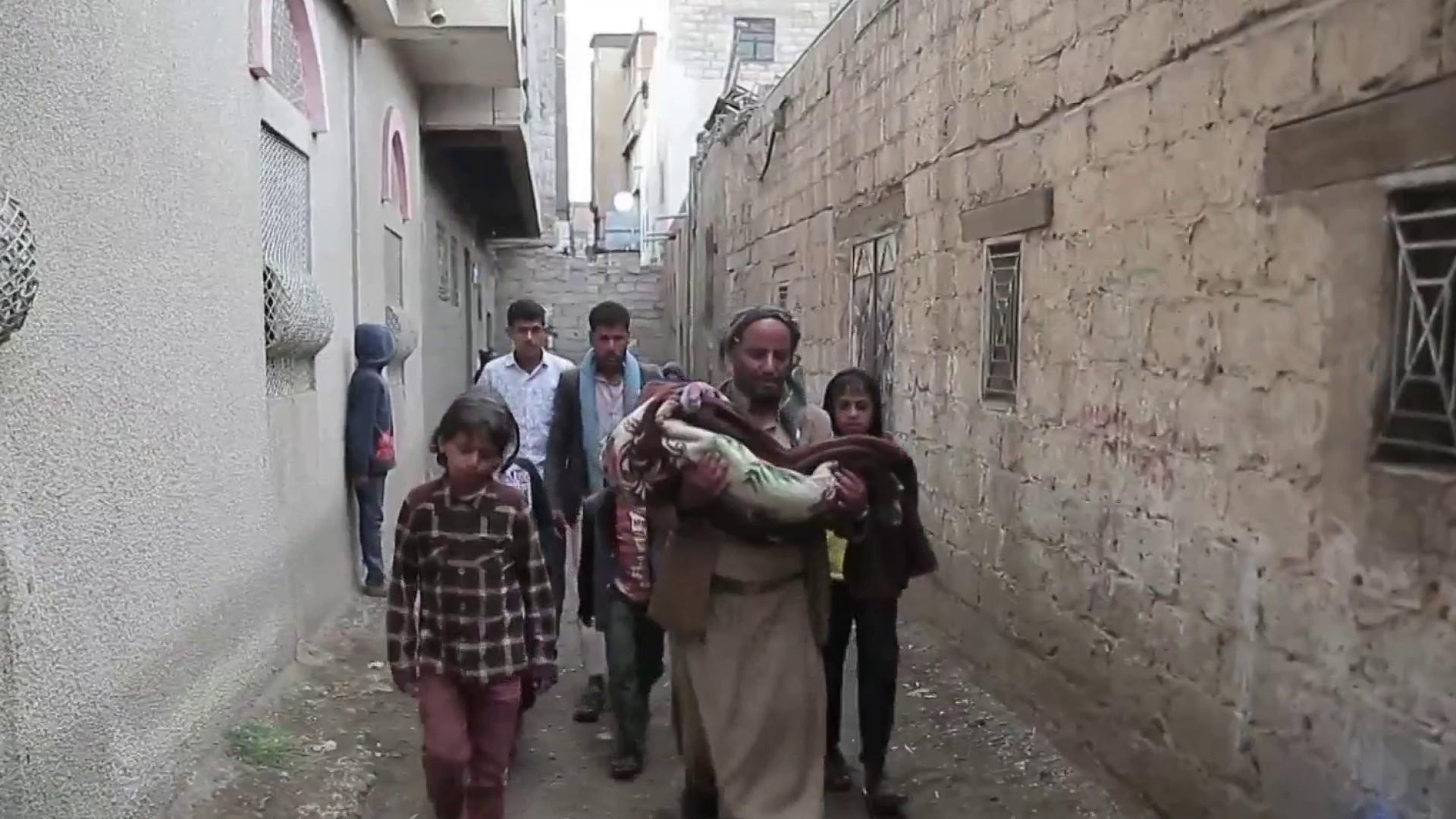 children suffer as war famine devastate yemen