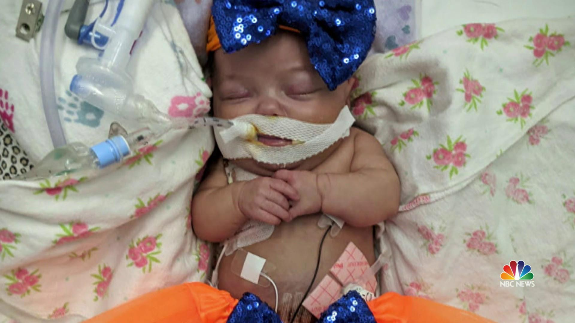 Miracle Premature Baby Born at 25 Weeks in a Car During a Snowstorm is Now Thriving