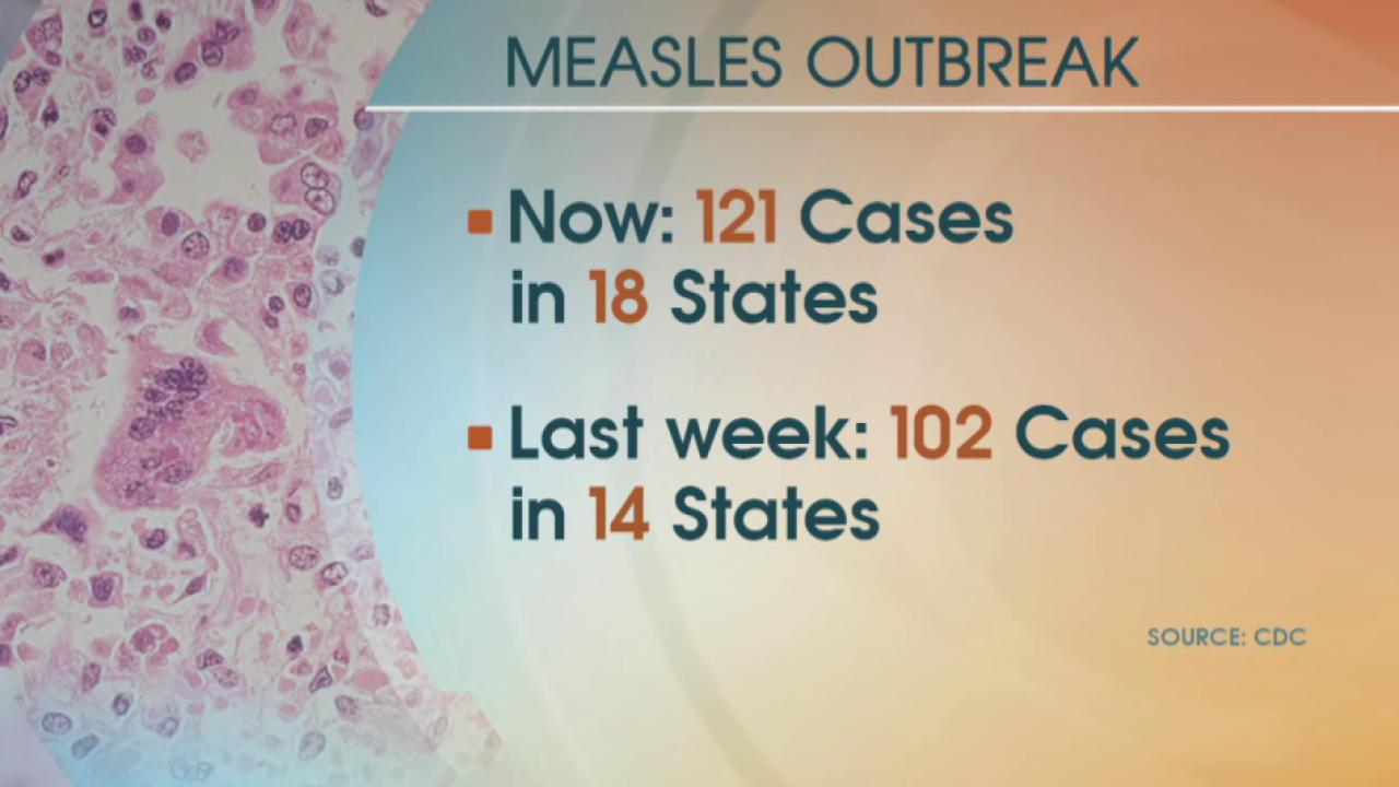 New CDC stats show measles outbreak growing