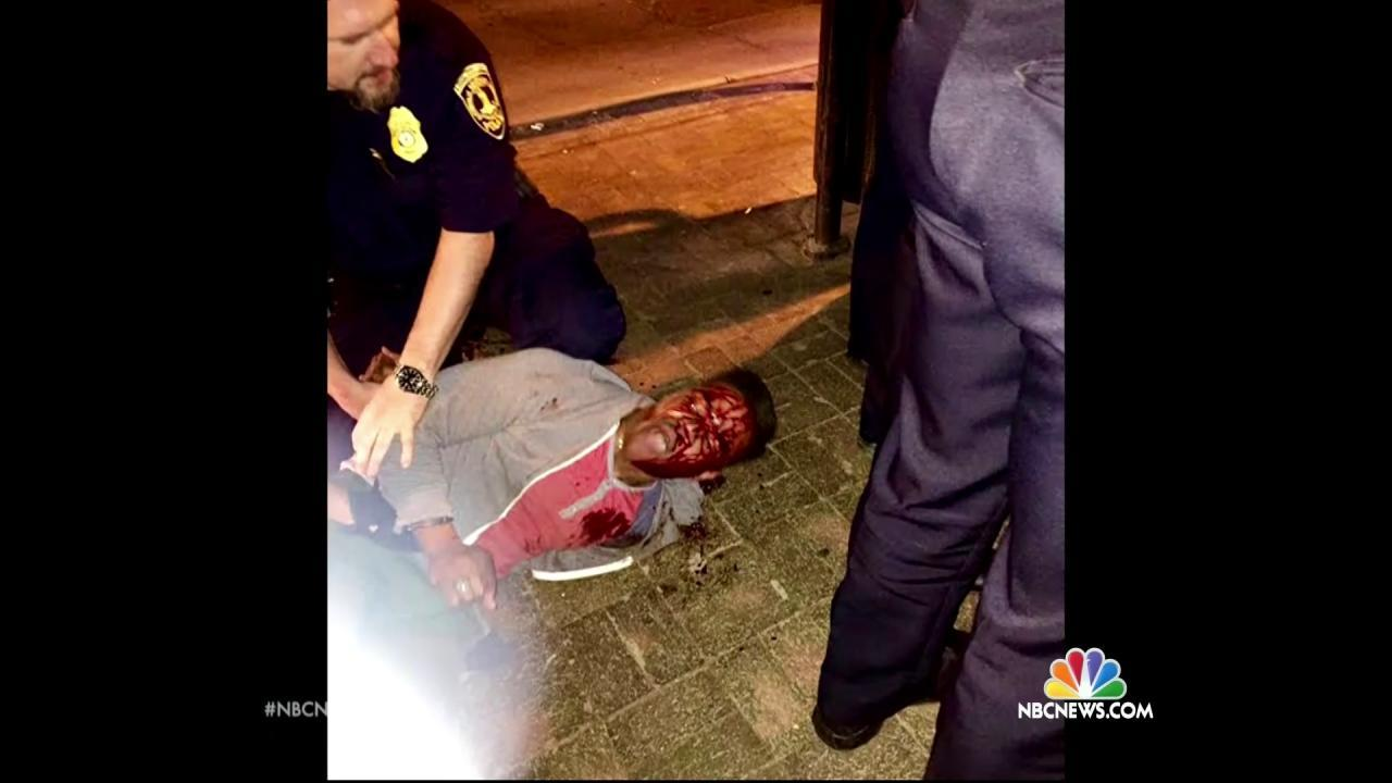 Martese Johnson Was 'Polite and Cordial' Before Arrest, Bar Says