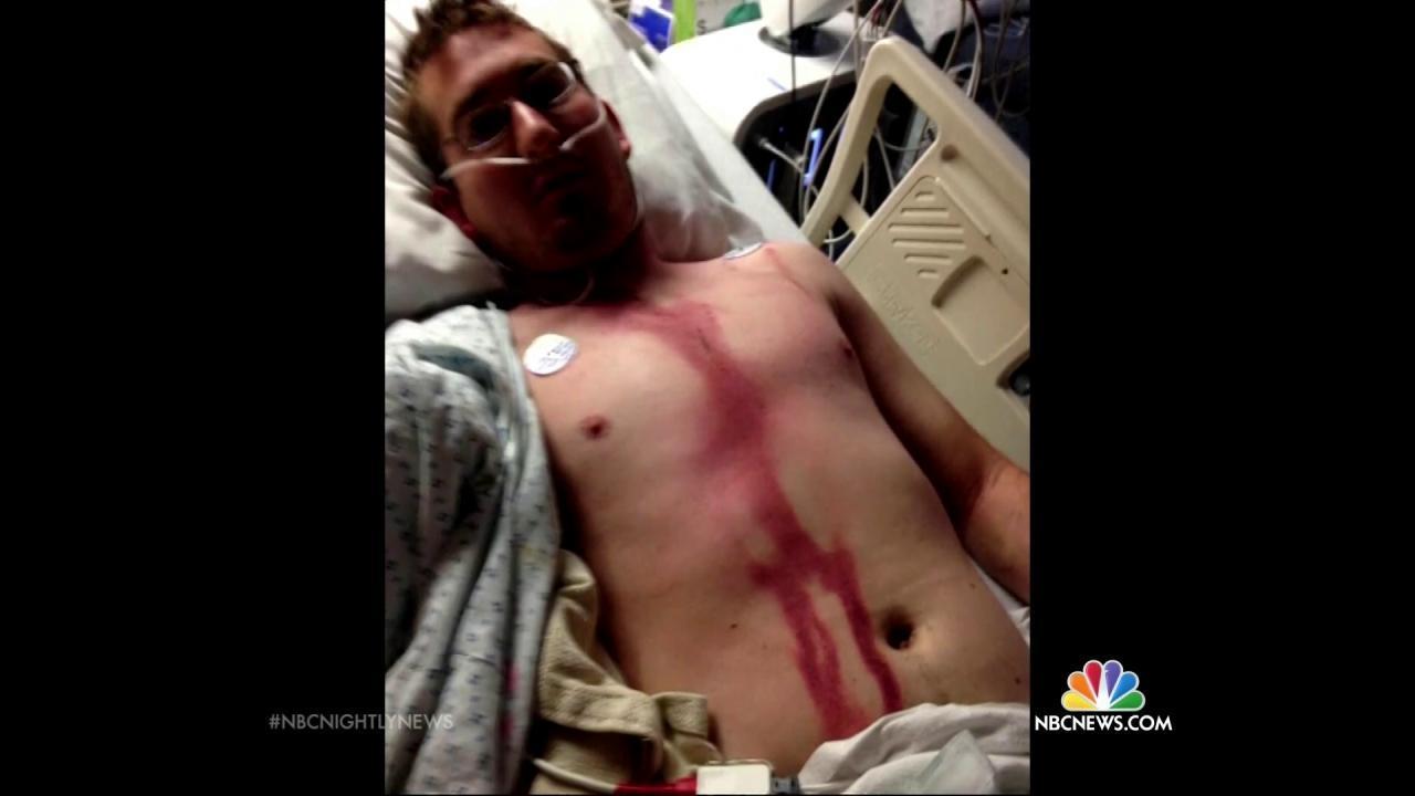 & Idaho Man Survives Memorial Day Lightning Strike to Head