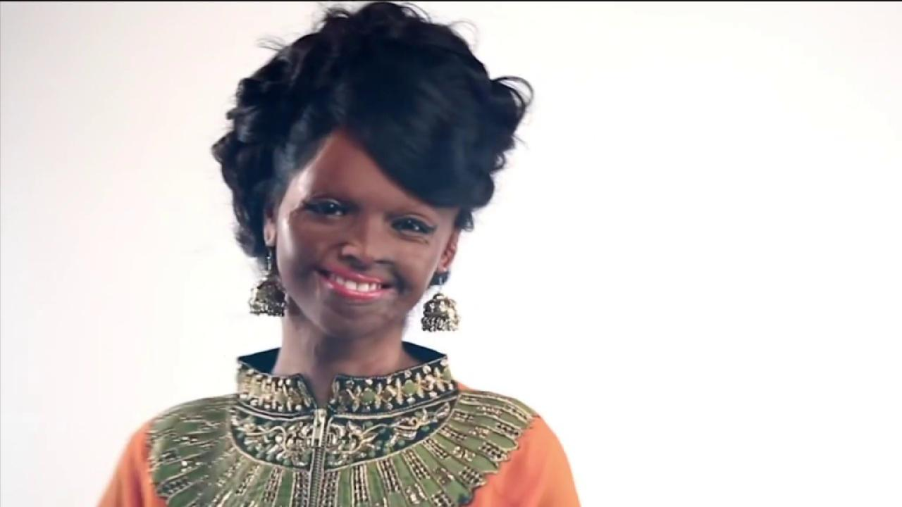 Fashion campaign features acid attack victim
