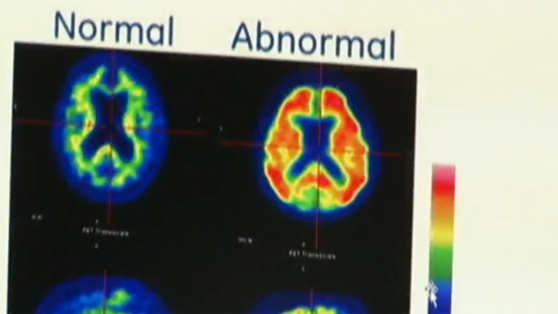 Many With Alzheimer's Never Get the Diagnosis: Report