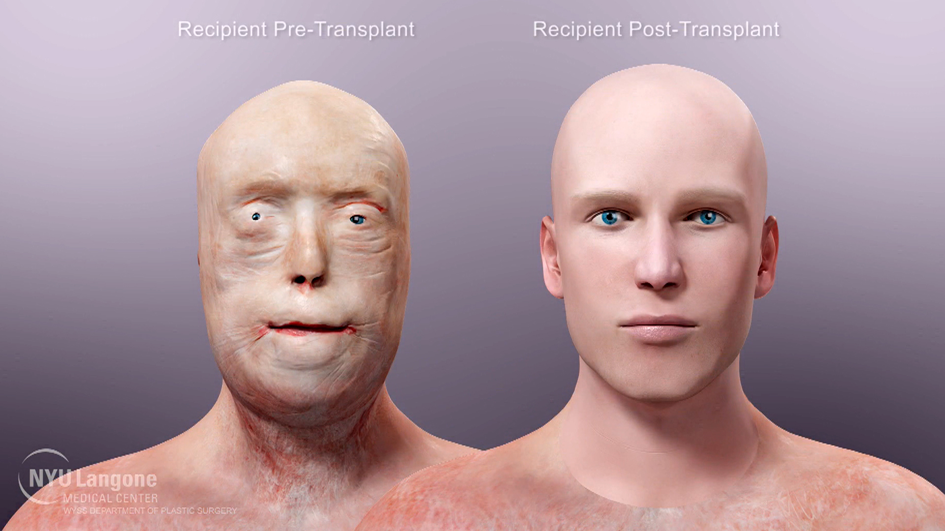 Facial first transplant world opinion you