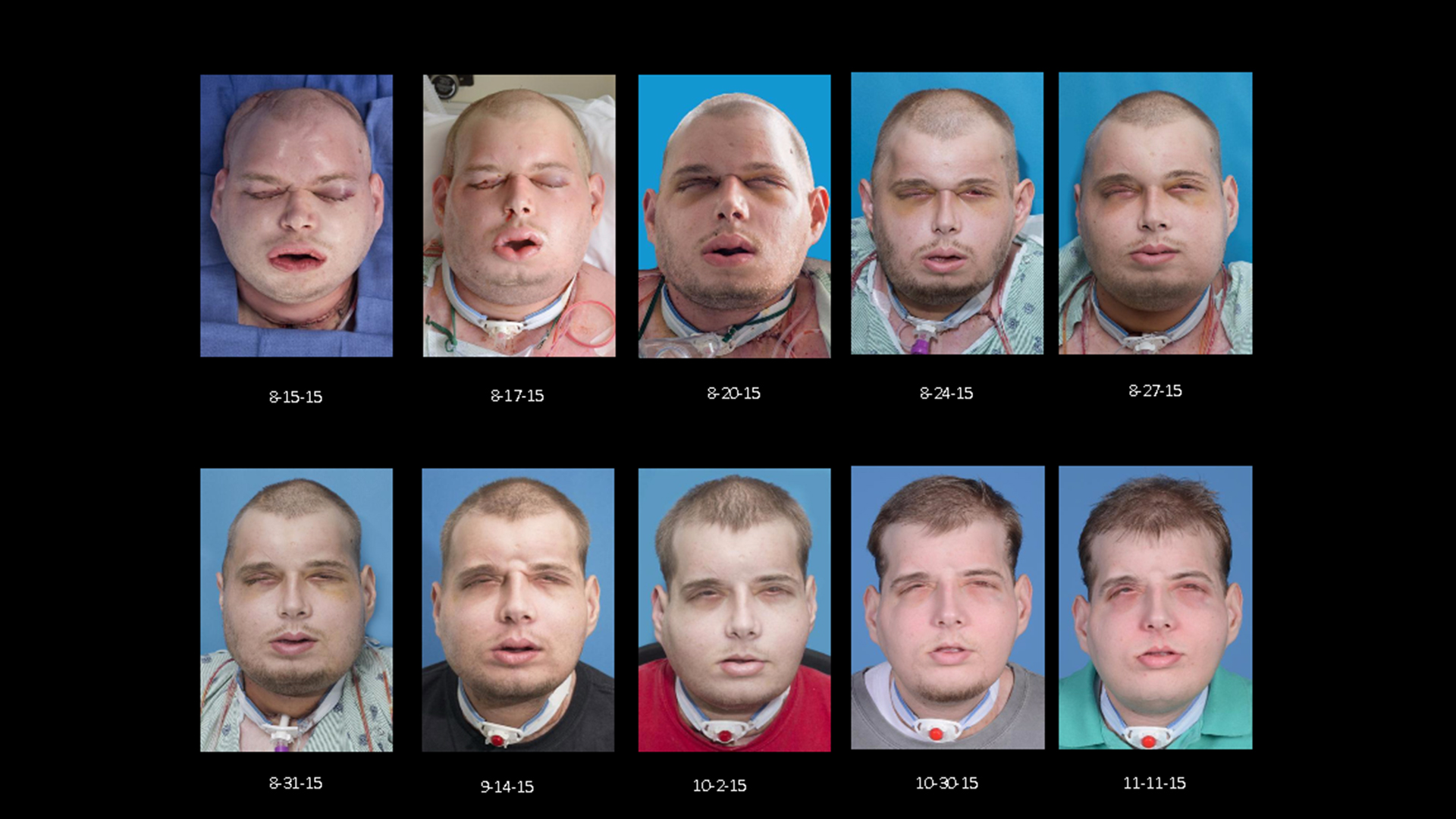 Firefighter patrick hardison adjusts to new face after transplant progress of face transplant recipient captured in time lapse voltagebd Gallery