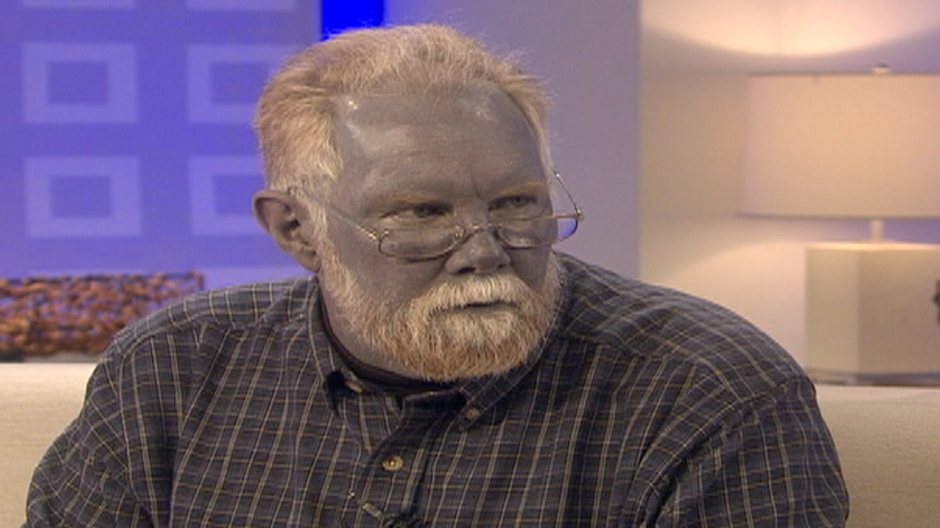 Real-life 'Blue Man' dies after heart attack, stroke ...