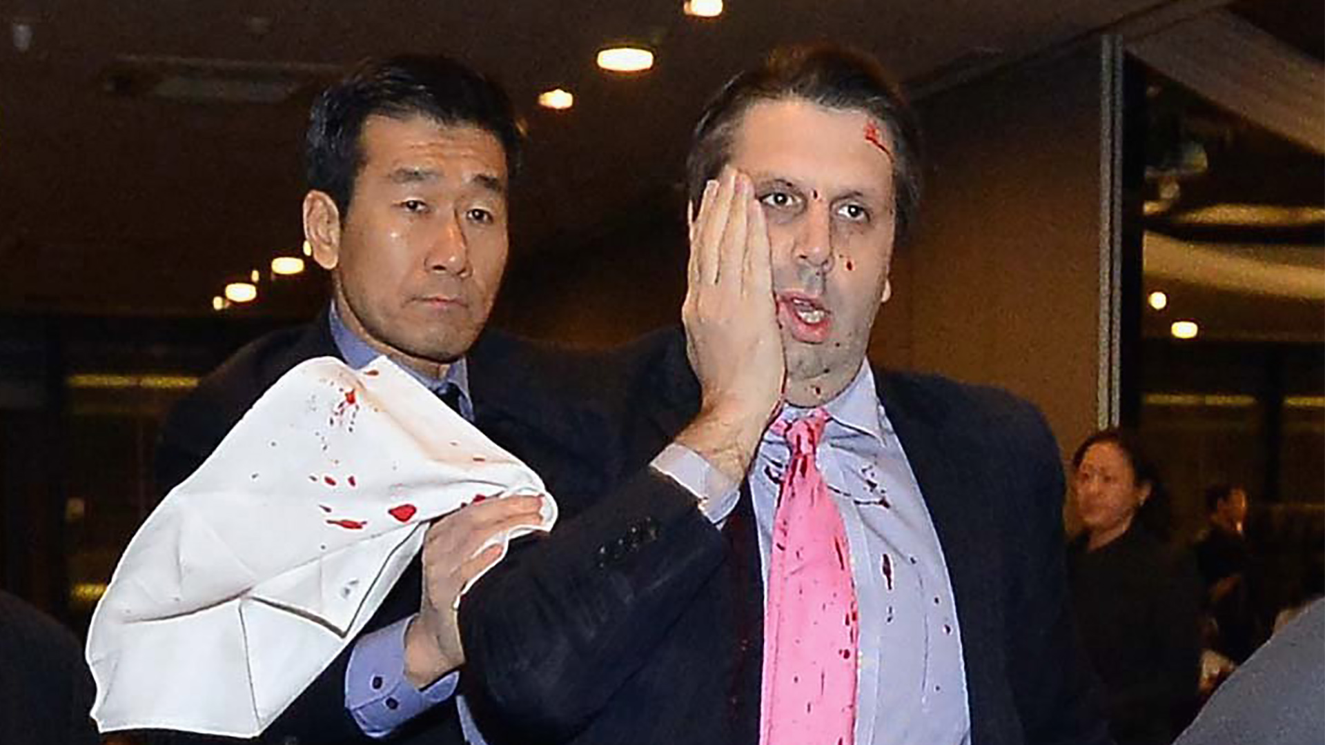 Ambassador Mark Lippert Attack: Suspect Charged With Attempted Murder
