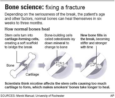 Quit smoking for faster bone healing? - Health - Health care - More