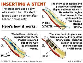 Fda panel cautiously backs new stent health heart health nbc news stents are very common in heart surgery and some doctors use them in the neck arteries too even though the stroke prevention use hasnt formally won food ccuart Choice Image