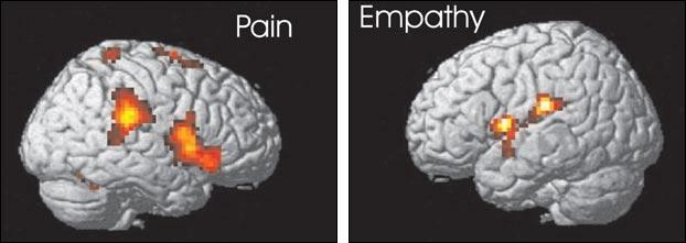 http://media2.s-nbcnews.com/i/msnbc/Components/Photos/020419/040219_scyimst_empathy_hlrg.jpg