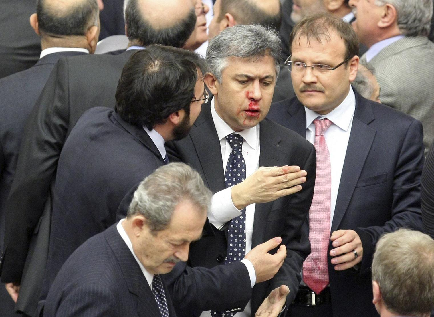 Image: Member of parliament from Republican People's Party Ali Ihsan Kokturk's nose bleeds in Ankara