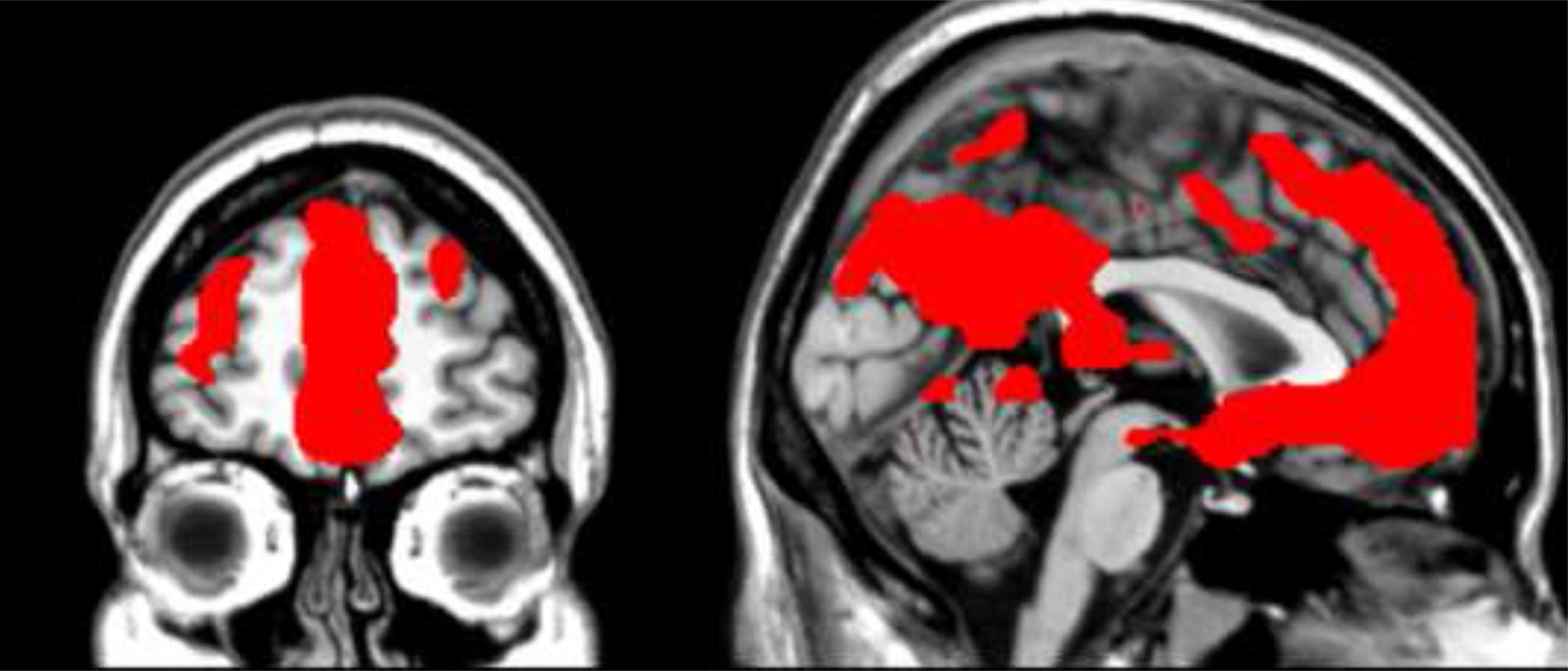 empathy workout  brain training may boost altruism