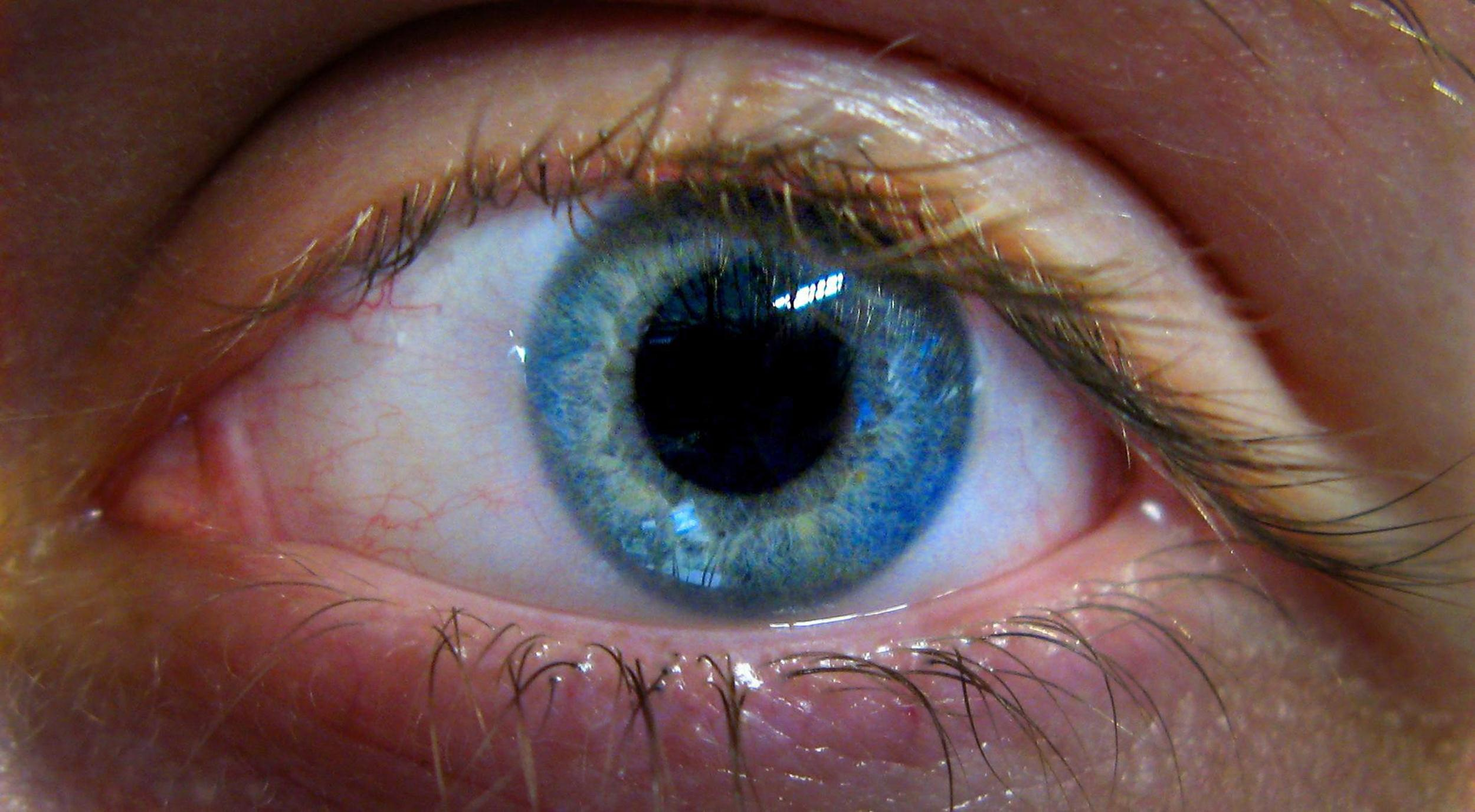 Image: A human eye on June 14, 2007