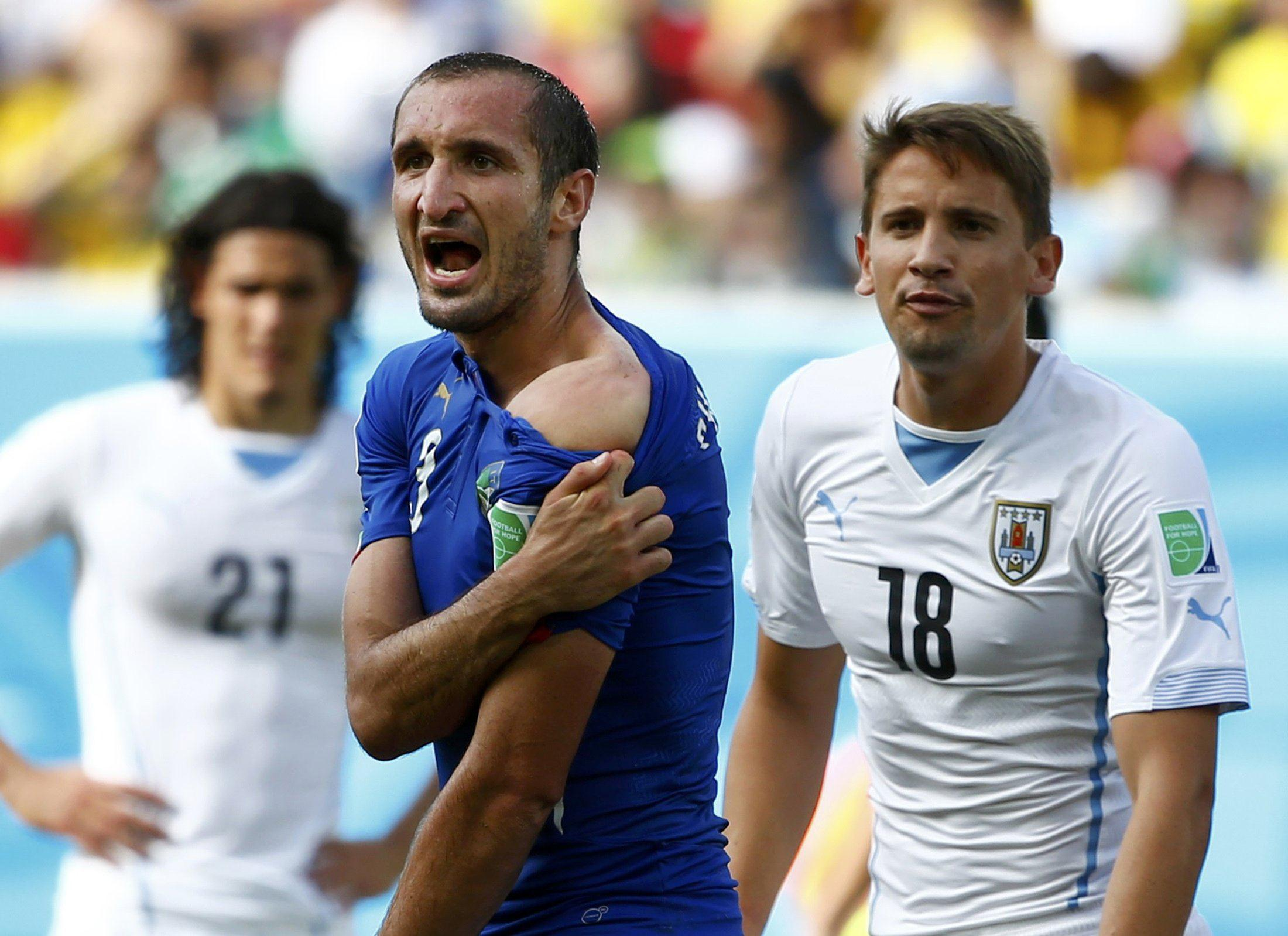 Image: Italy's Giorgio Chiellini shows his shoulder, claiming he was bitten by Uruguay's Luis Suarez