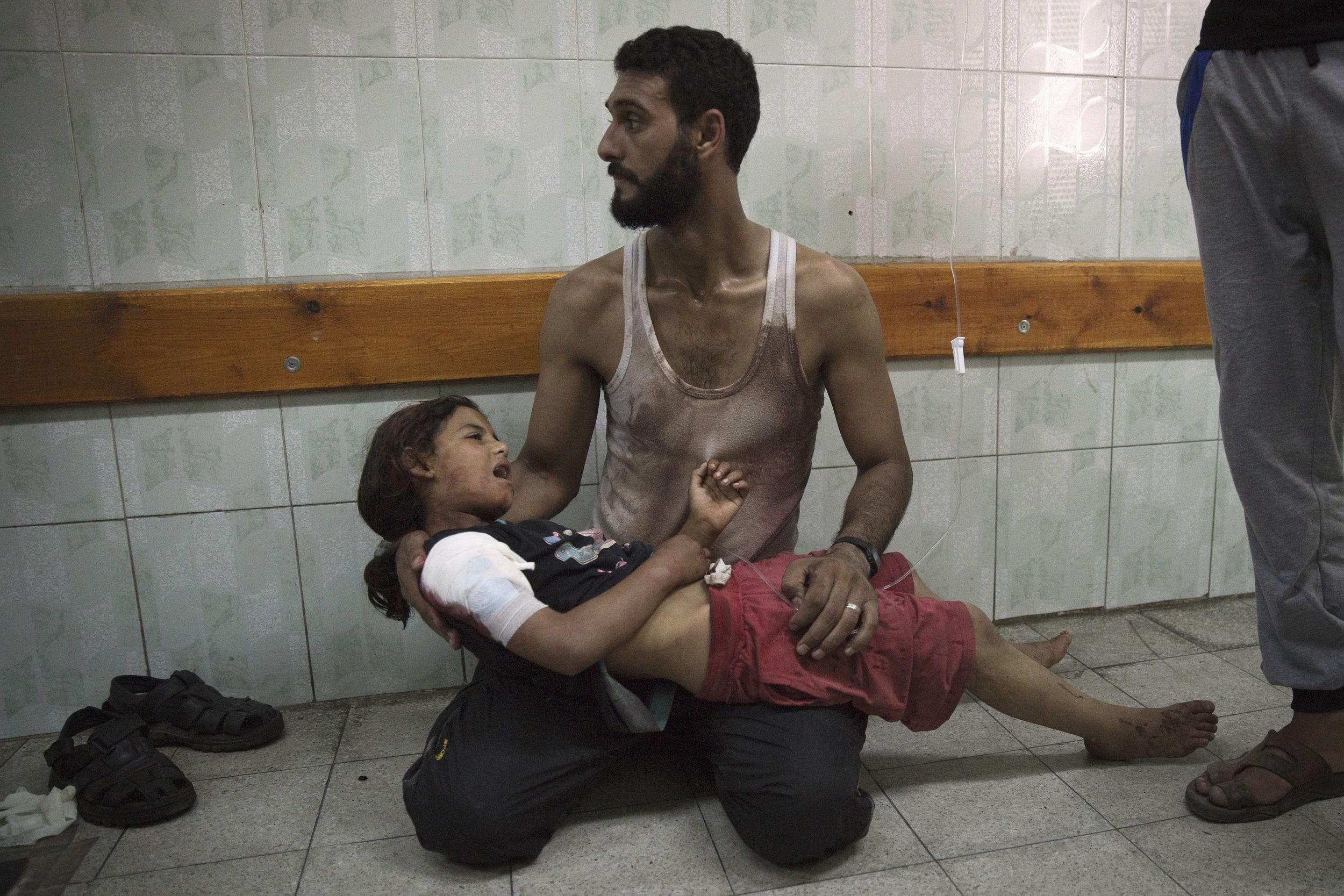 Image: Palestinian girl wounded by shelling of U.N.-run school in Gaza on July 24
