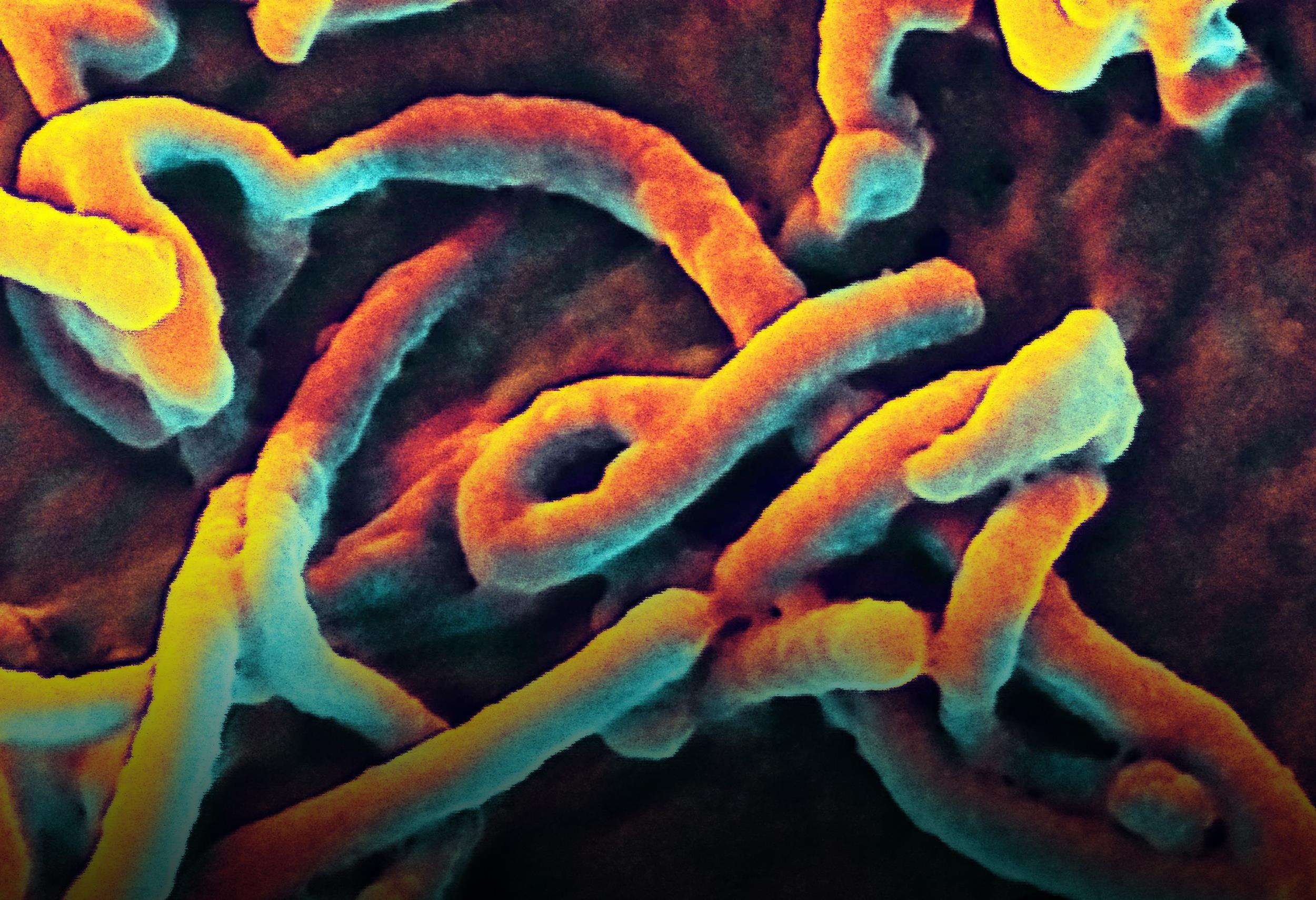 ebola virus Scientists have identified potential biomarkers in nonhuman primates exposed to ebola virus (ebov) that appeared up to four days before the onset of fever.