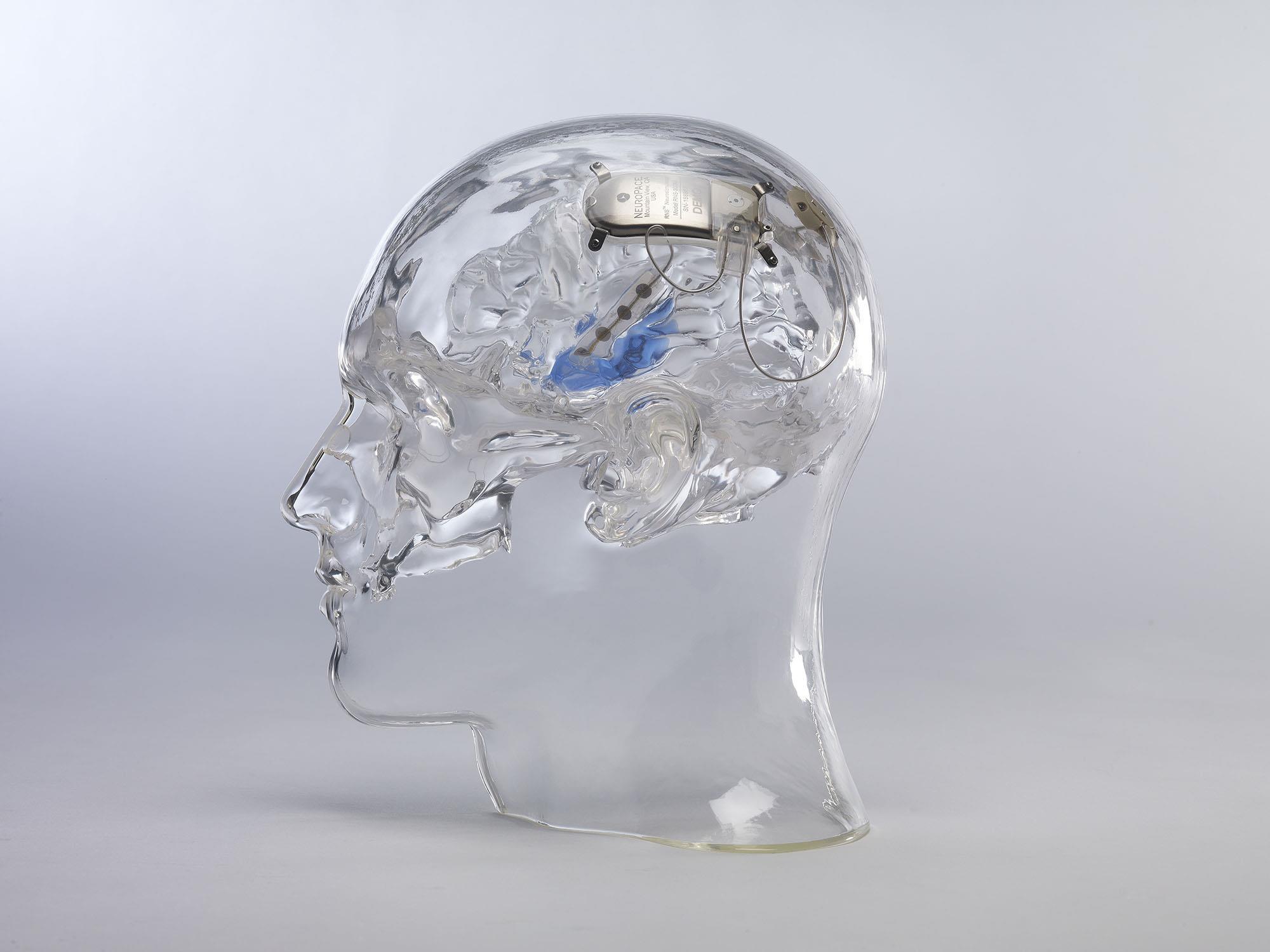 cyborgrx how smart implants could change medicine nbc news