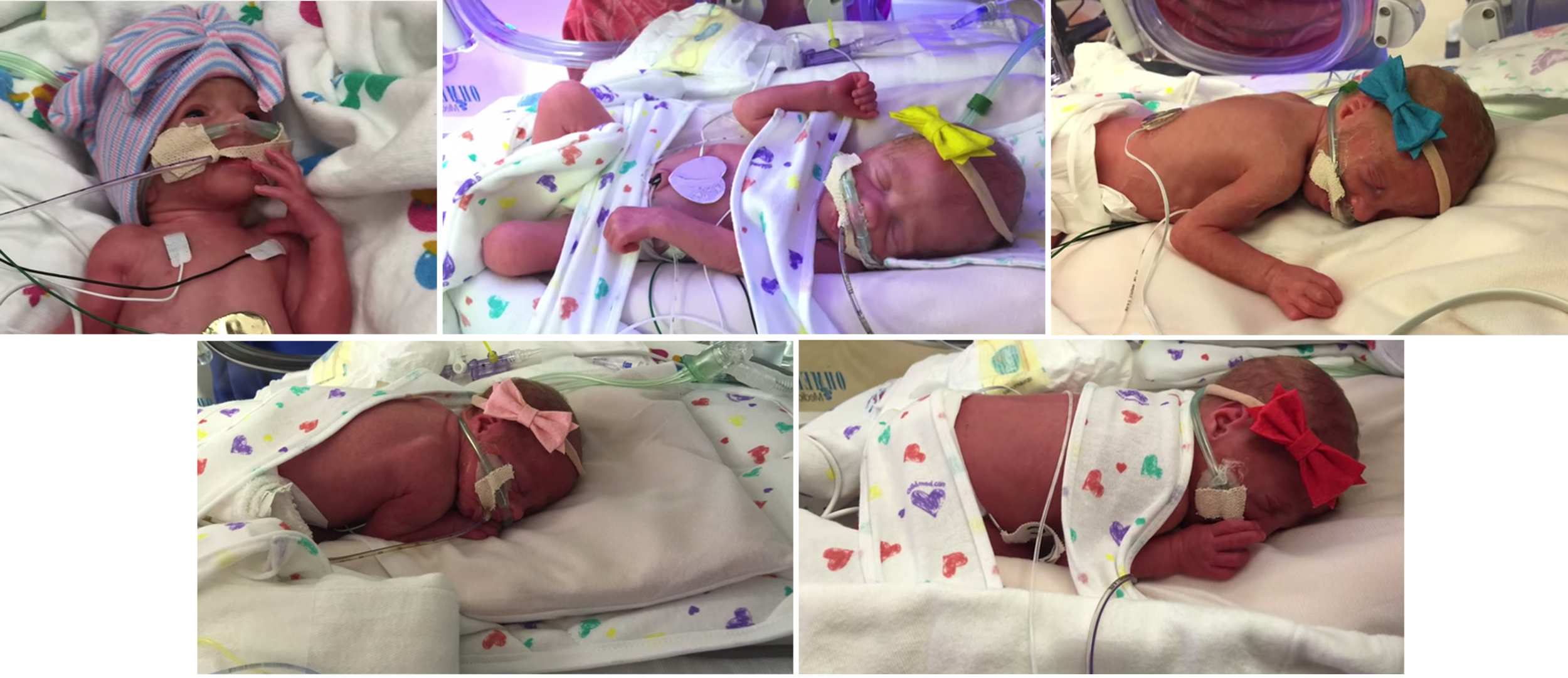 Thriving': First All-Girl Quintuplets in U S  Are Born in Texas