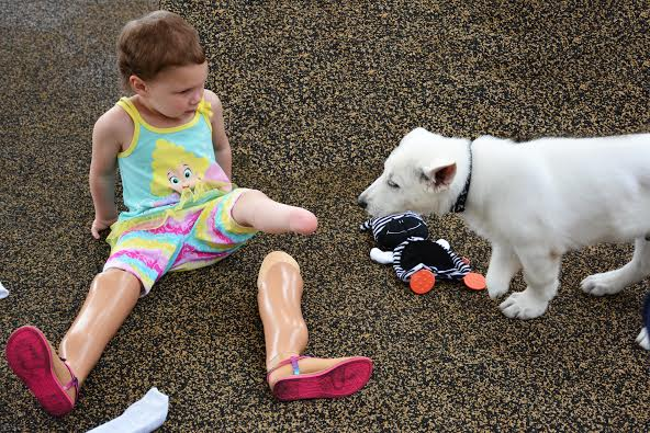 Girl Without Feet 3 Finds Perfect Match Puppy Missing