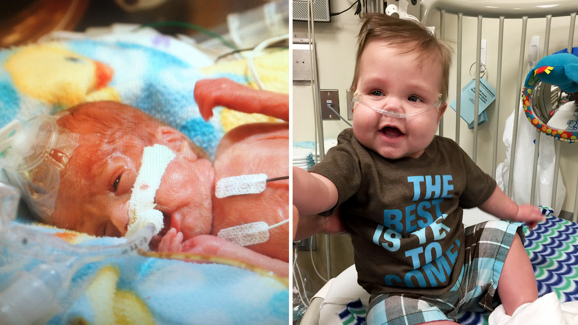 Micropreemie Goes Home After Spending 345 Days In The Nicu