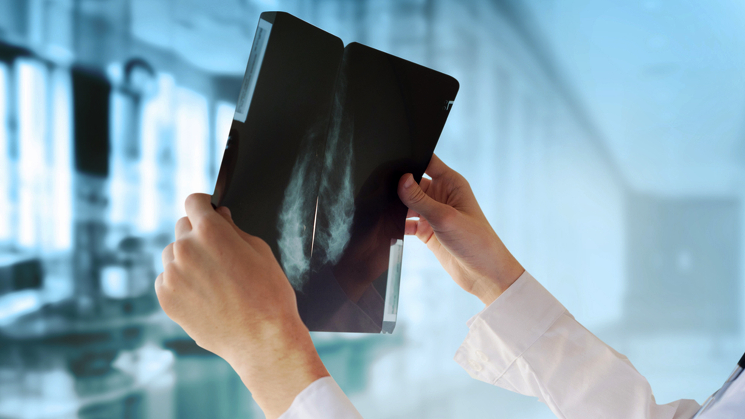 How often should you get a mammogram? It's complicated