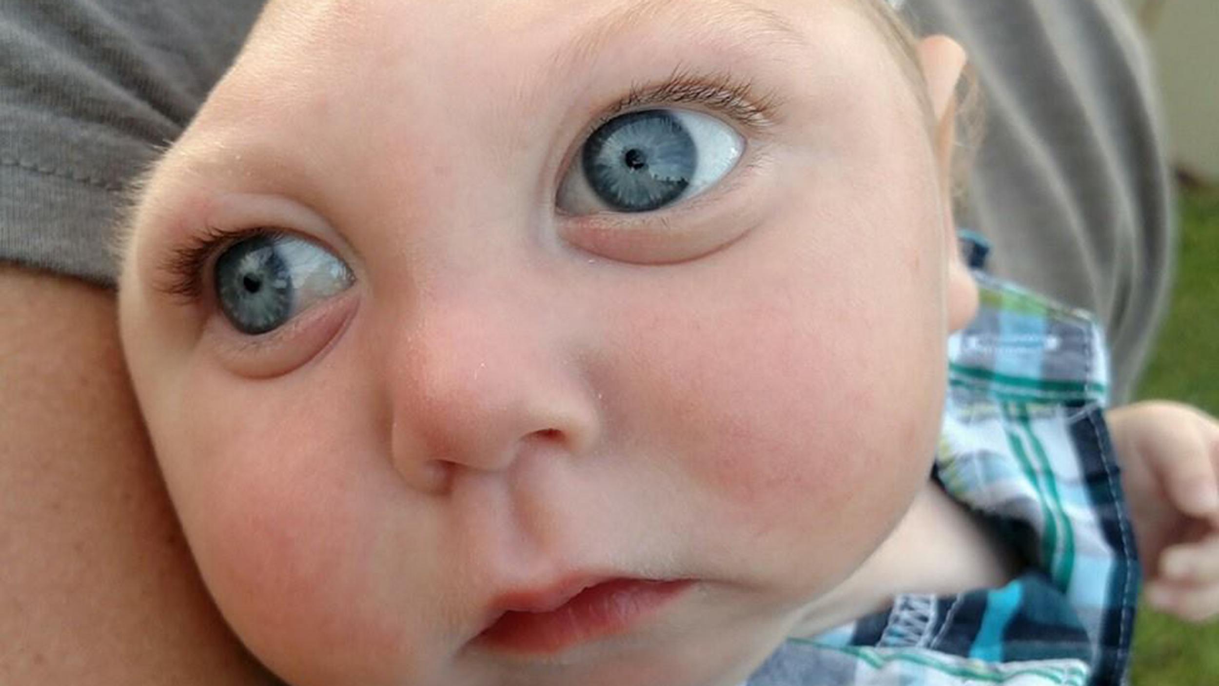 Jaxon Strong:\' Baby missing part of brain thrives despite odds ...
