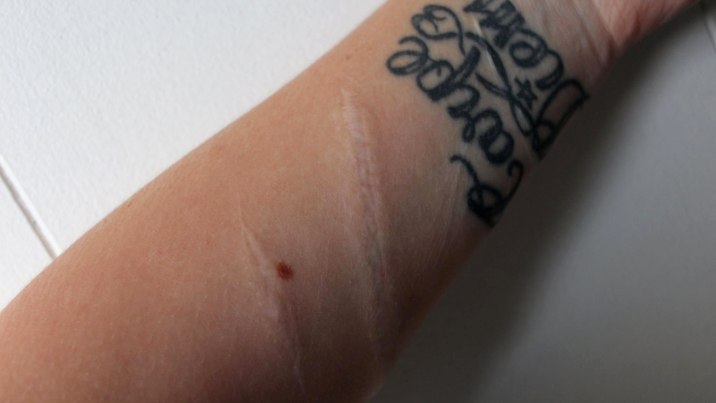 Woman posts scars from suicide attempt to help troubled for Tattoos over self harm scars pictures