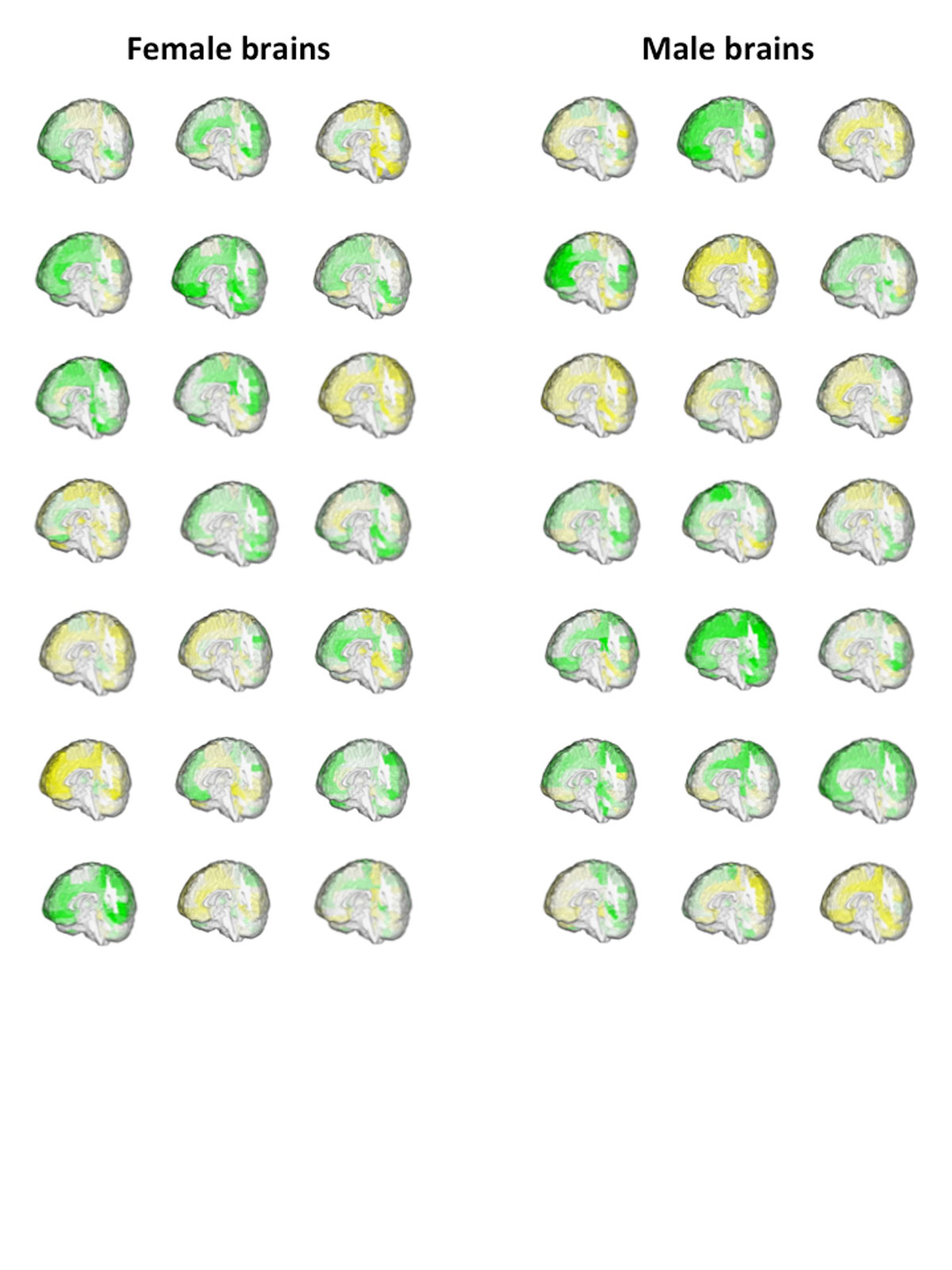 Can You Tell Which Brains Are Male Neither Can These Scientists