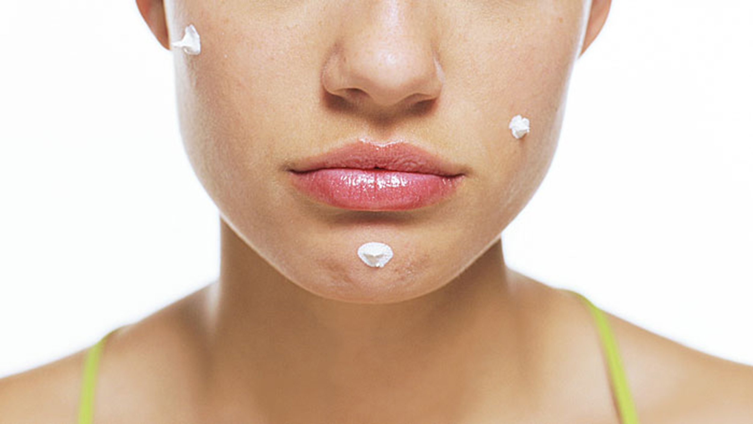 acne adult cures