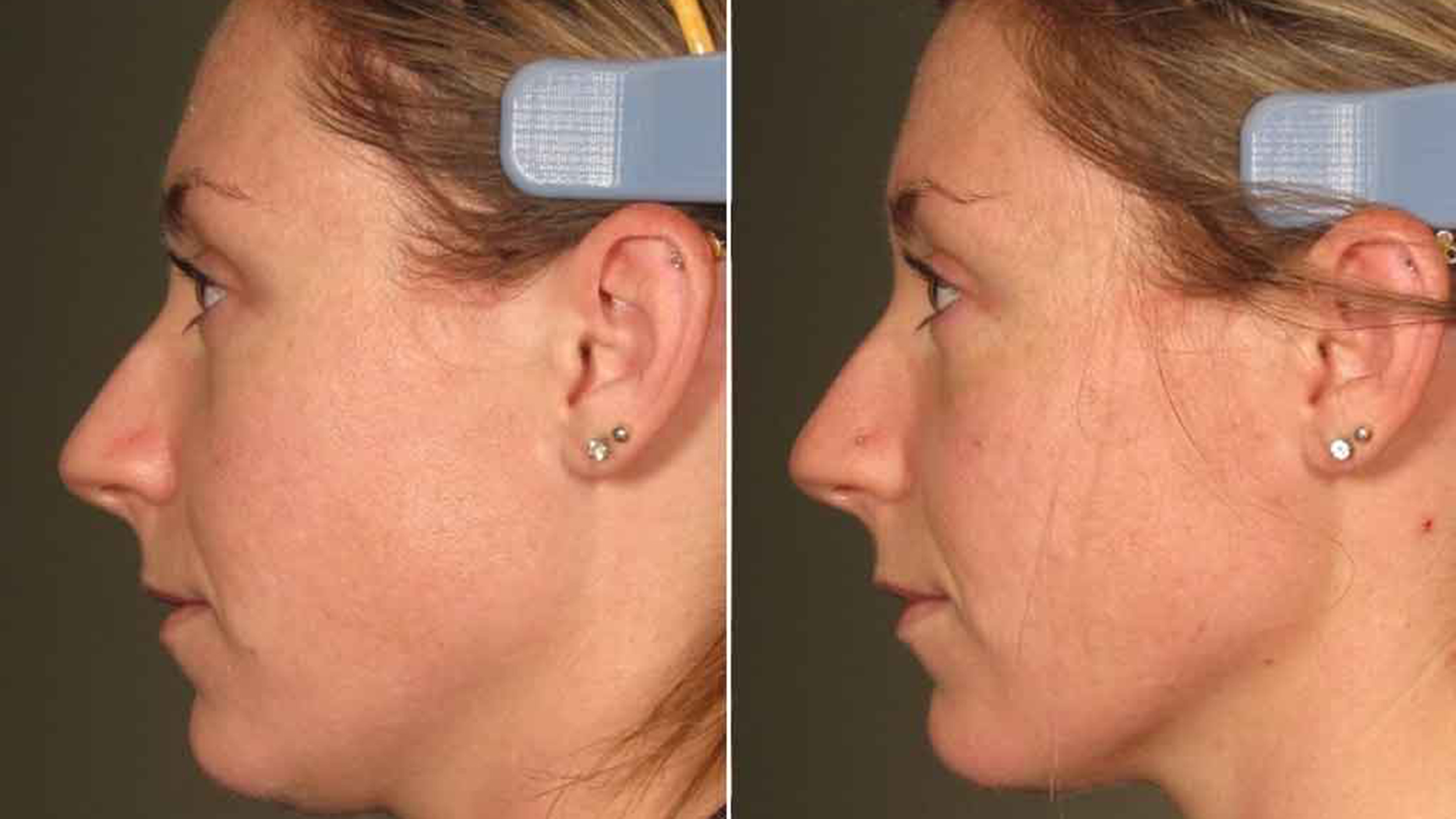 What Is Ultherapy Review Amp Cost Of The Mini Lift Without