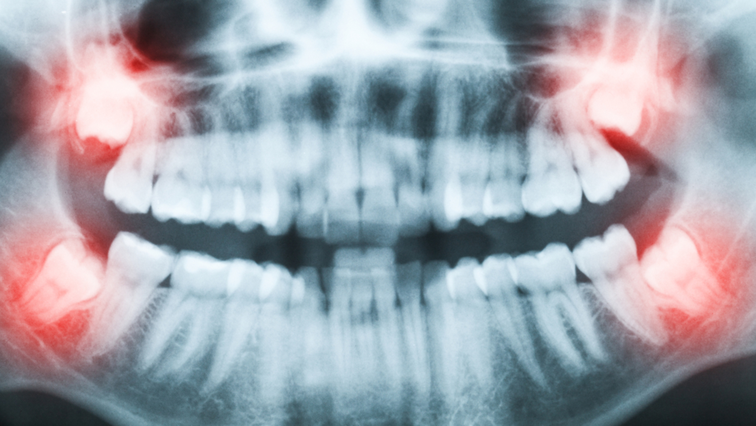 Should Your Teen S Wisdom Teeth Be Pulled Why Experts Disagree
