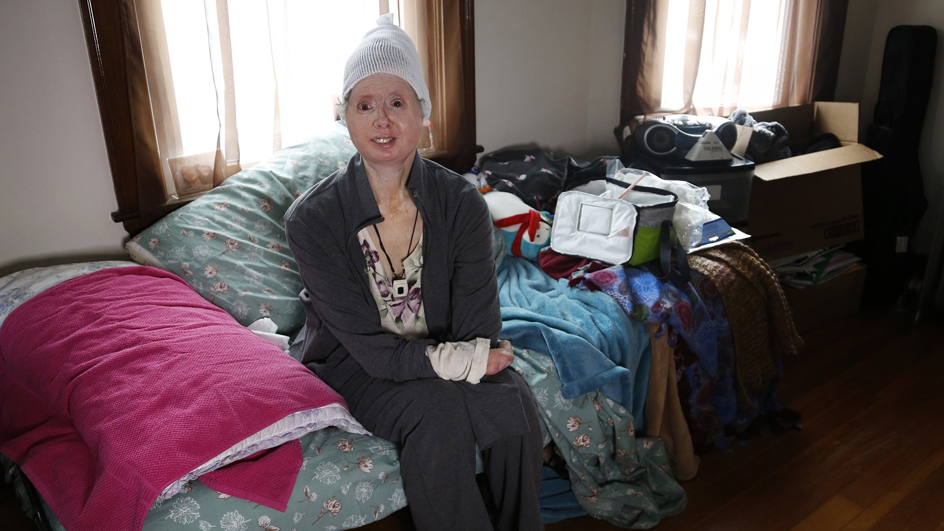Chimp attack survivor Charla Nash hopes to give back by helping
