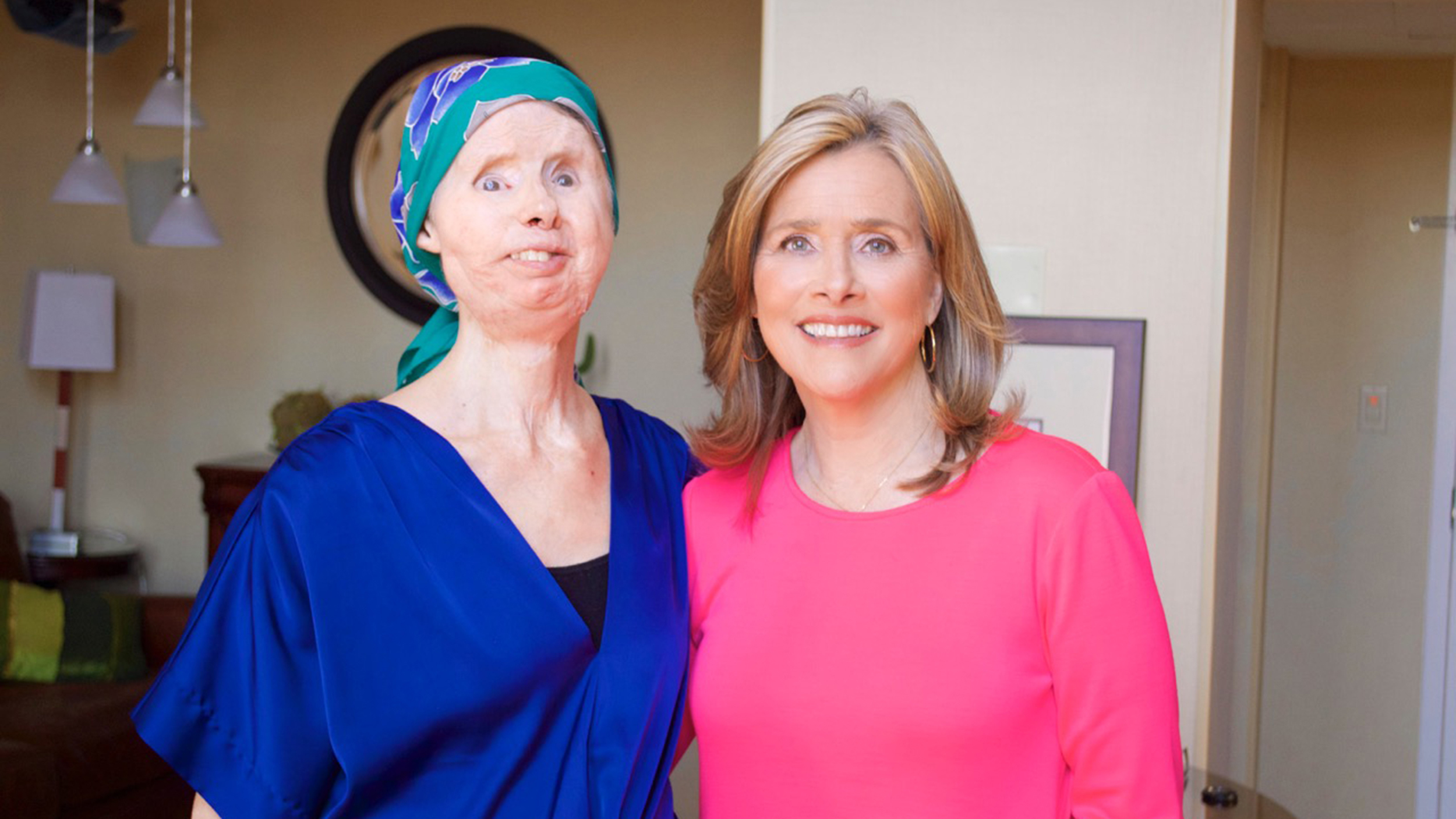 Charla Nash Opens Up About Recent Face Transplant Setback